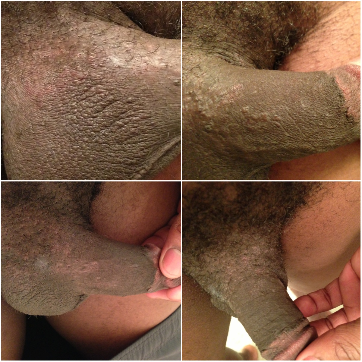 Hurts underside of penis