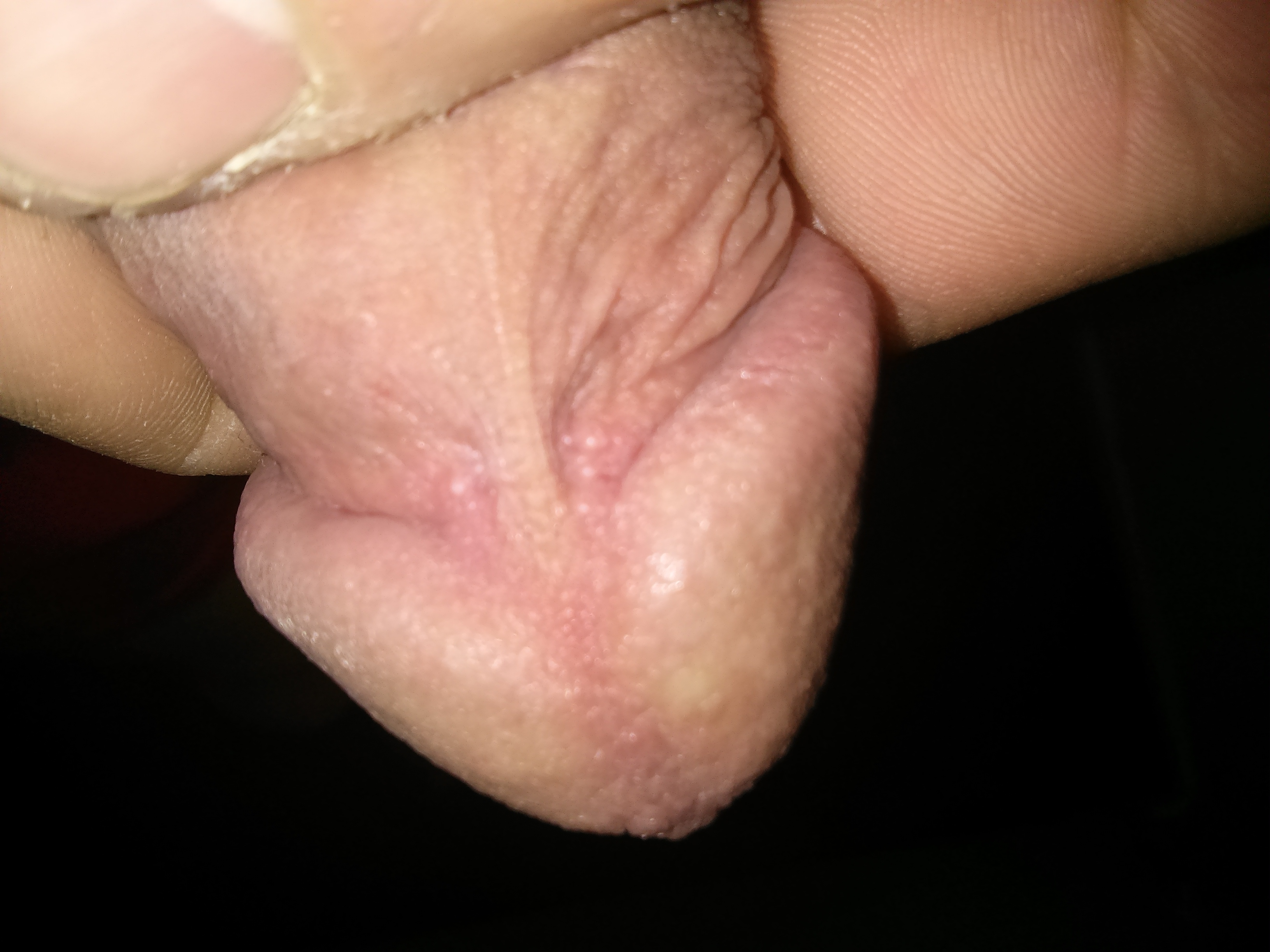 White mass on the head of the penis