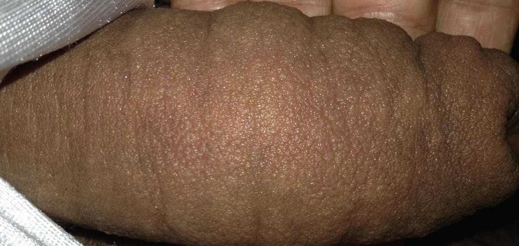Swollen Penis 48
