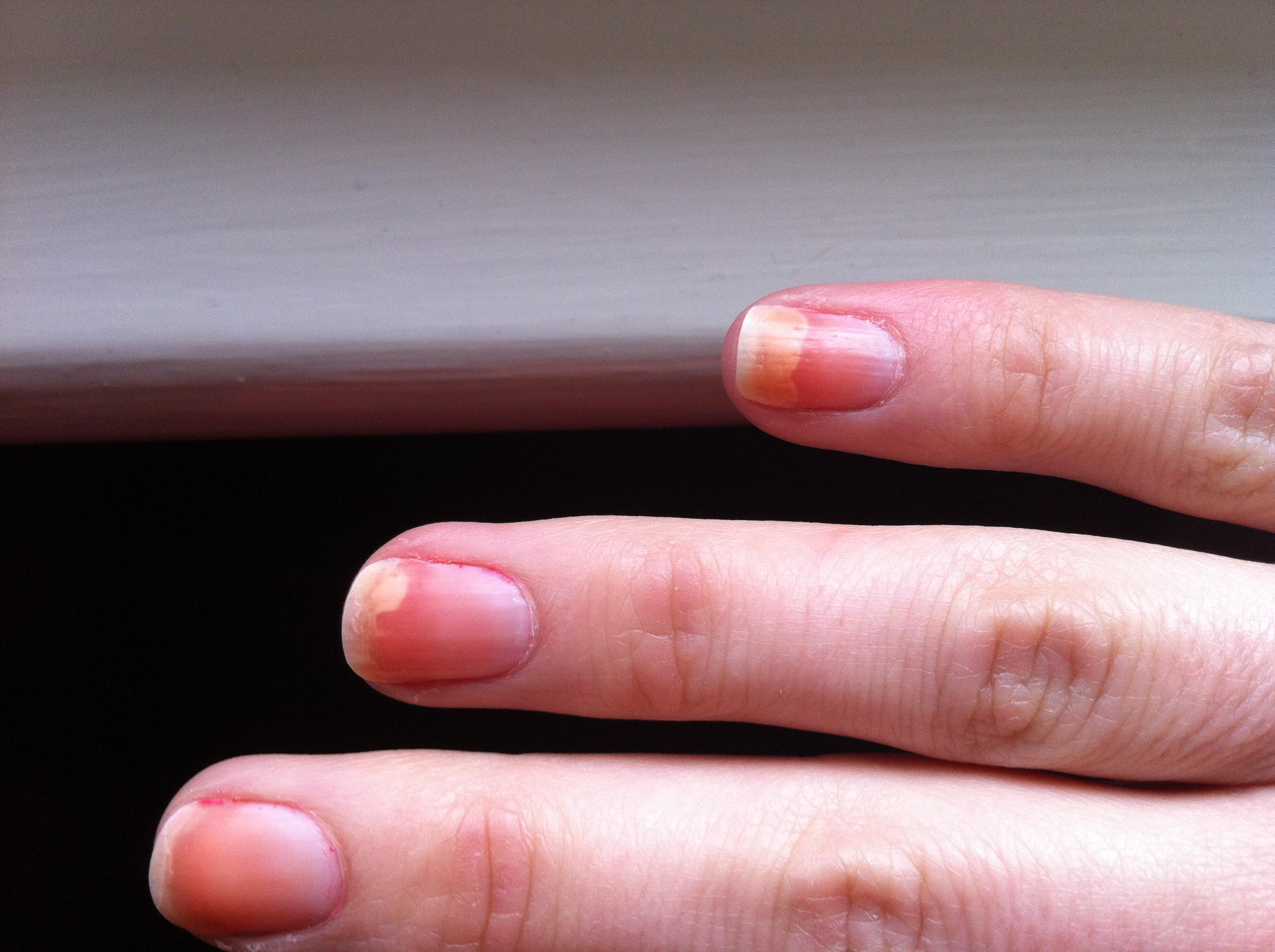 finger nails lifting