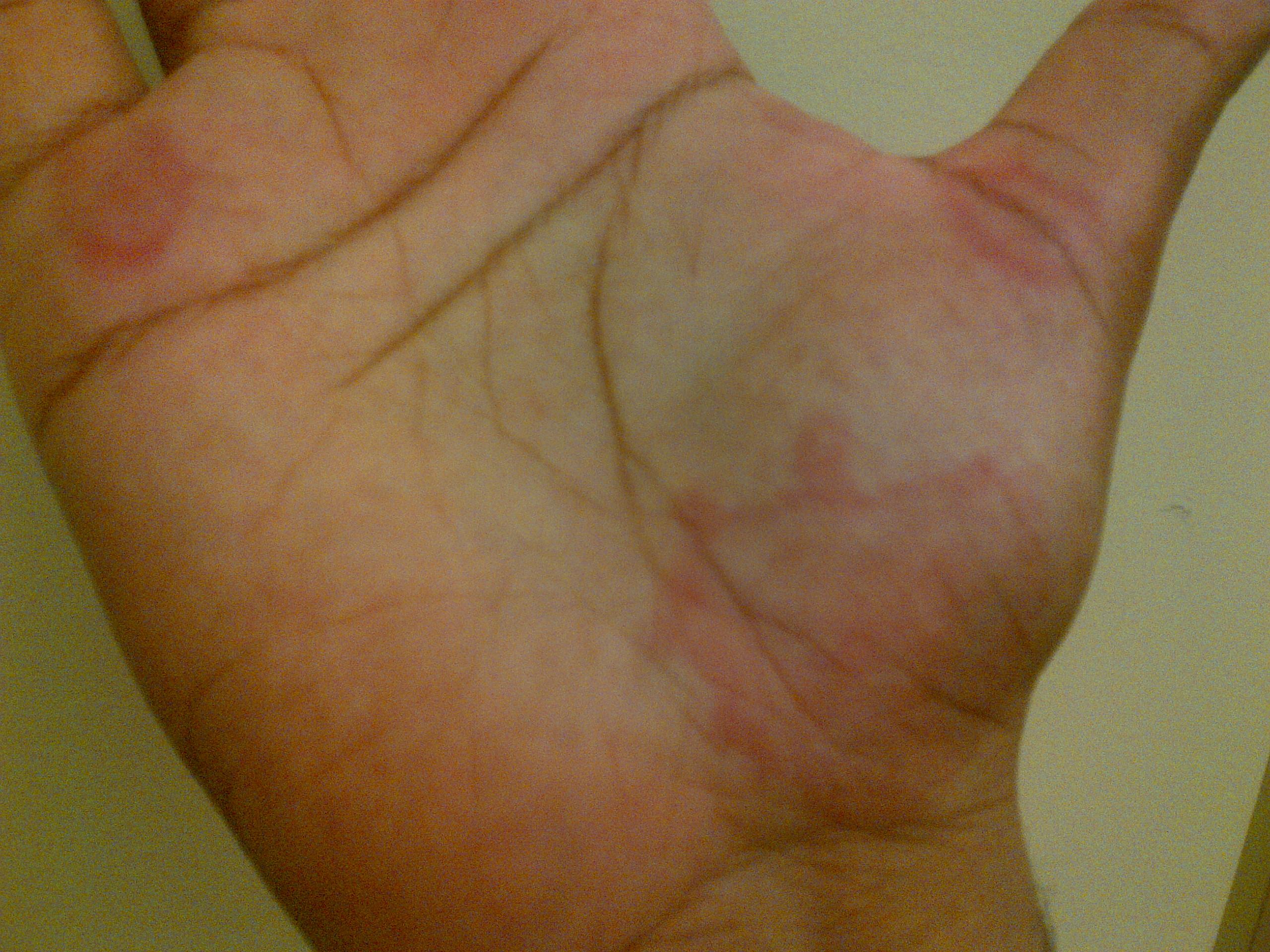 Itchy Skin Rash, Red Spots on Skin/Feet/Ears/Hands/Palms ...