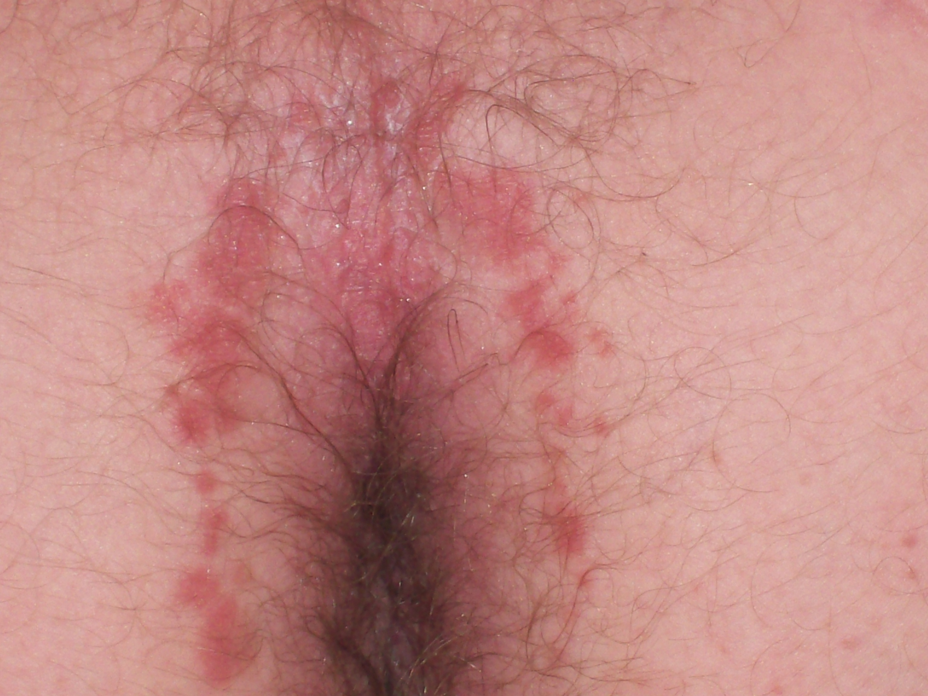 Butt rash adult male