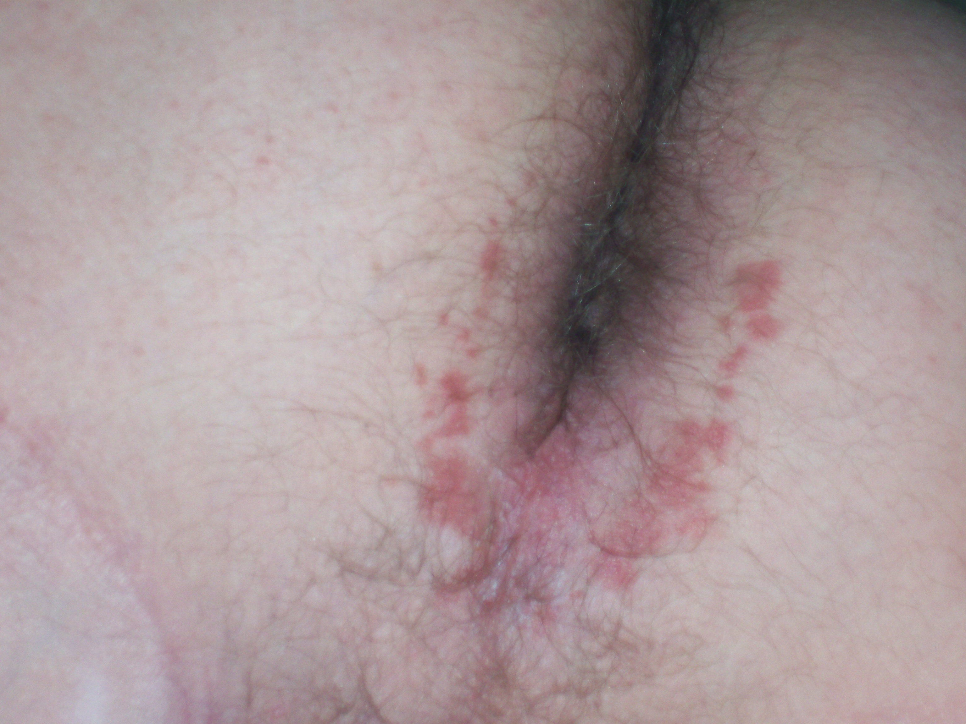 Ultimate redness around the area of anus