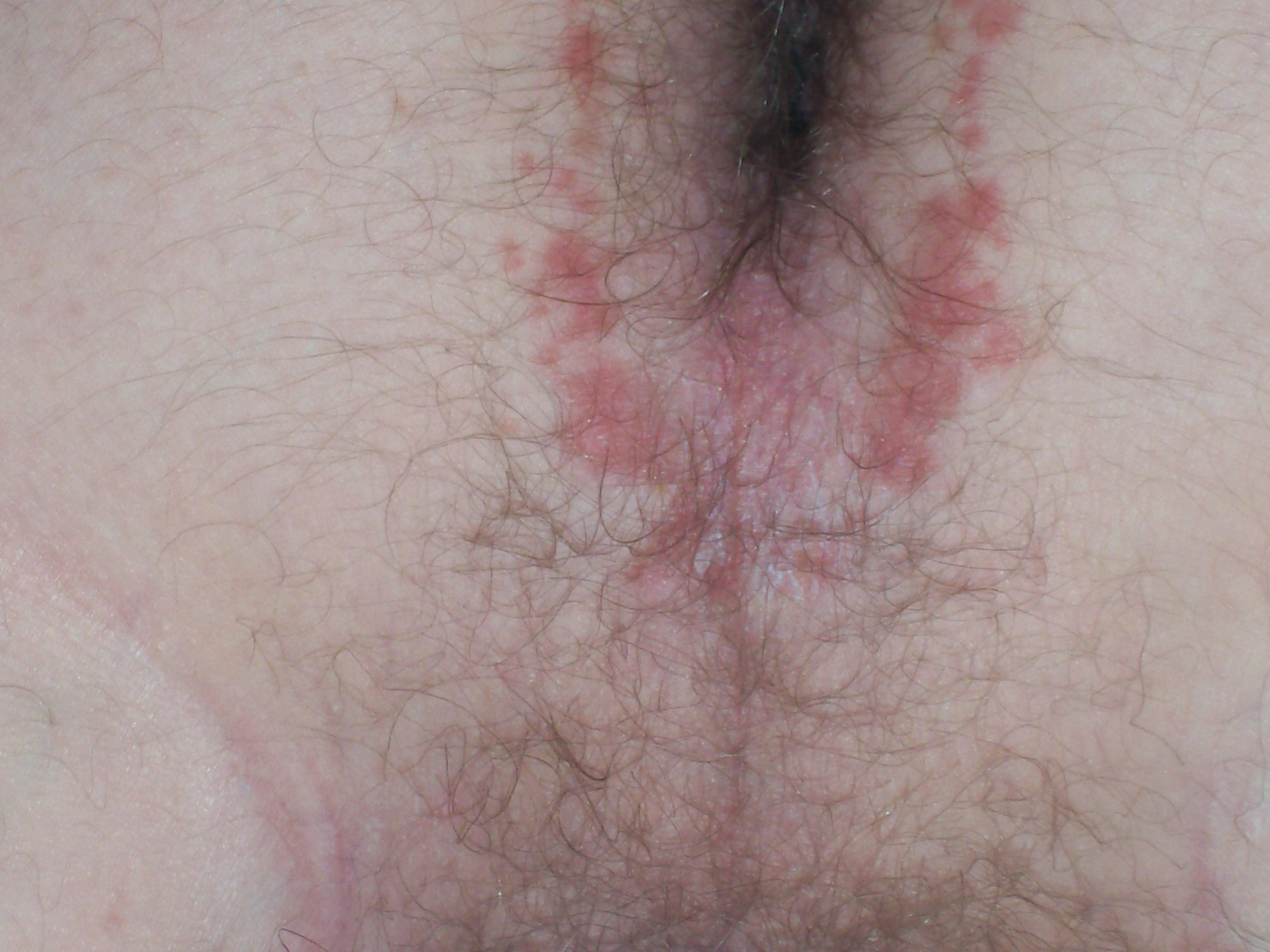 Redness around anus
