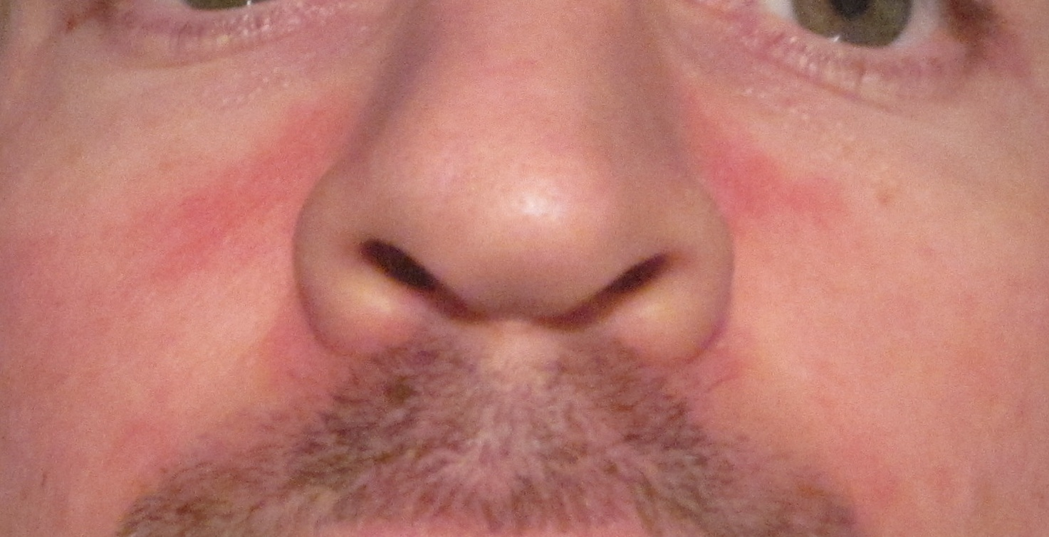 Top 11 Doctor Insights on red dry flaky skin around nose ...