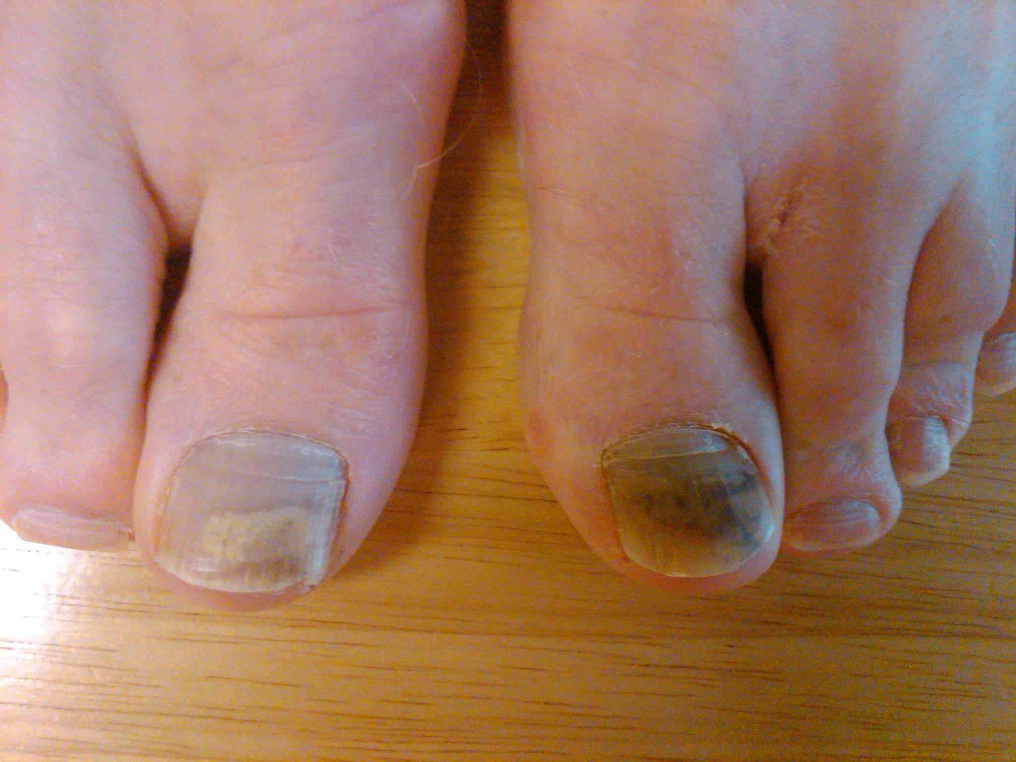 Melanoma toenail 4516477 - cours-particuliers-domicile.info