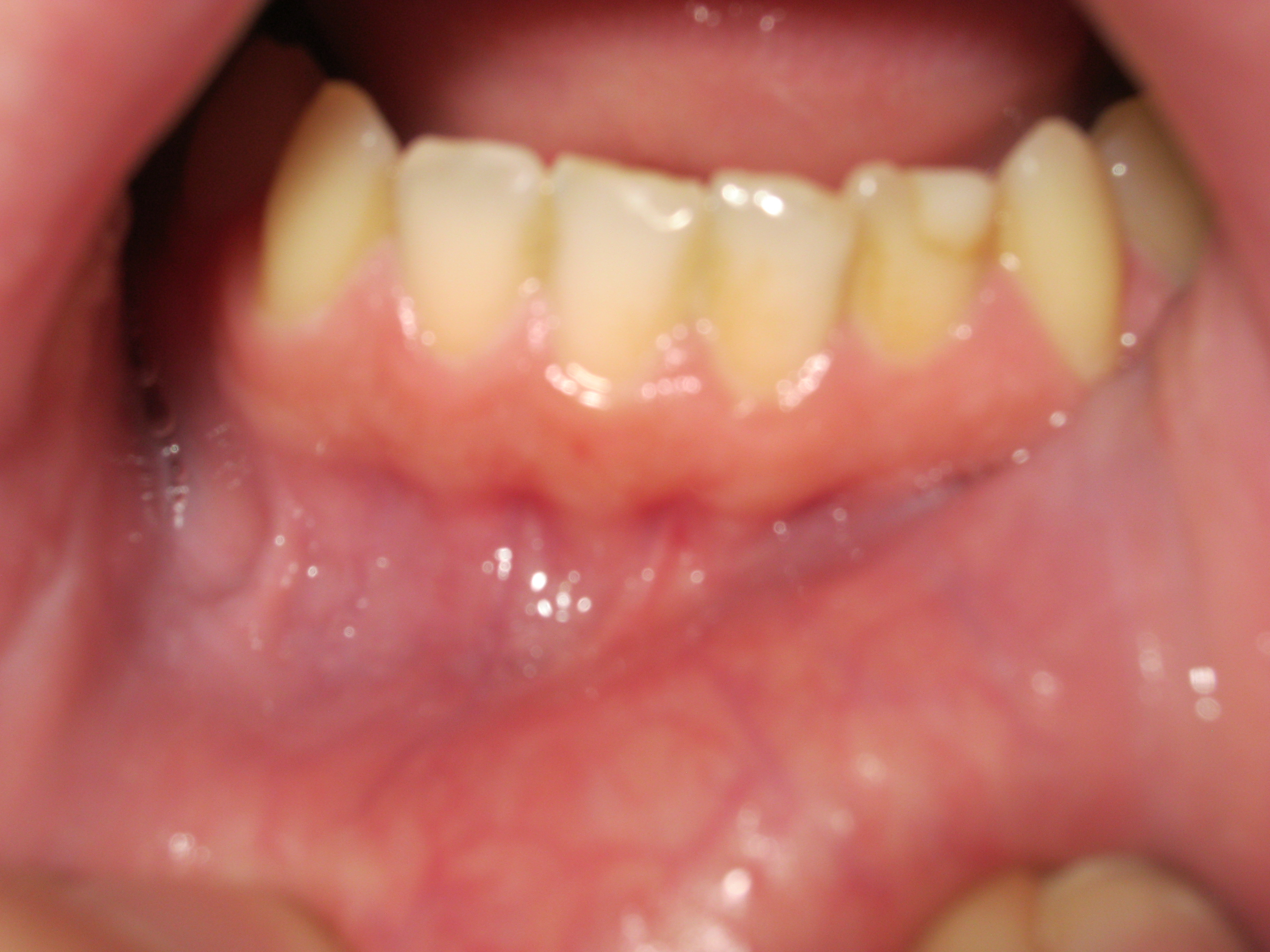 Why Do I Have White Colored Gums Around the Teeth? New