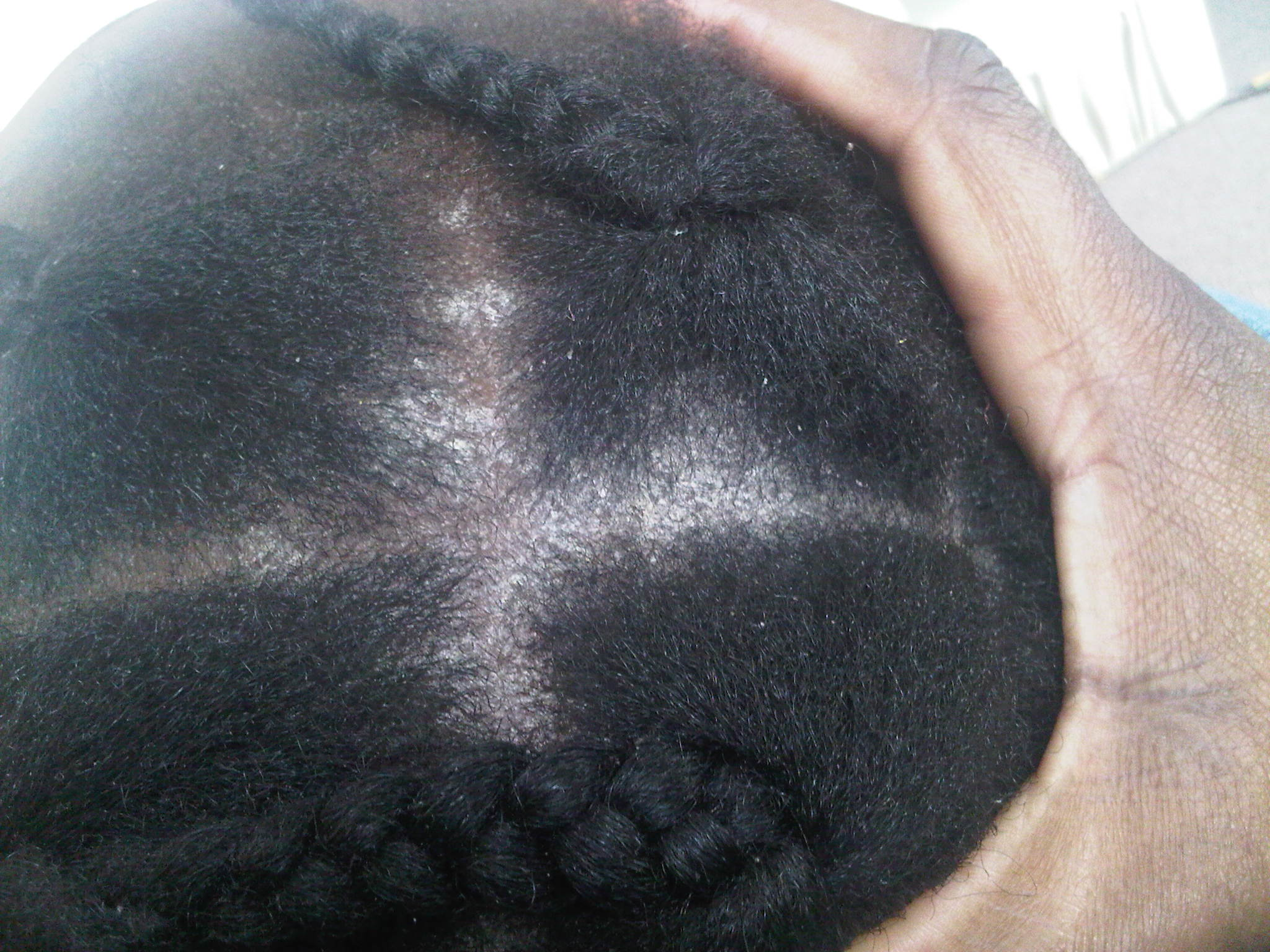 Scalp Fungus Pictures - Scalp Conditions Pictures | Types ...