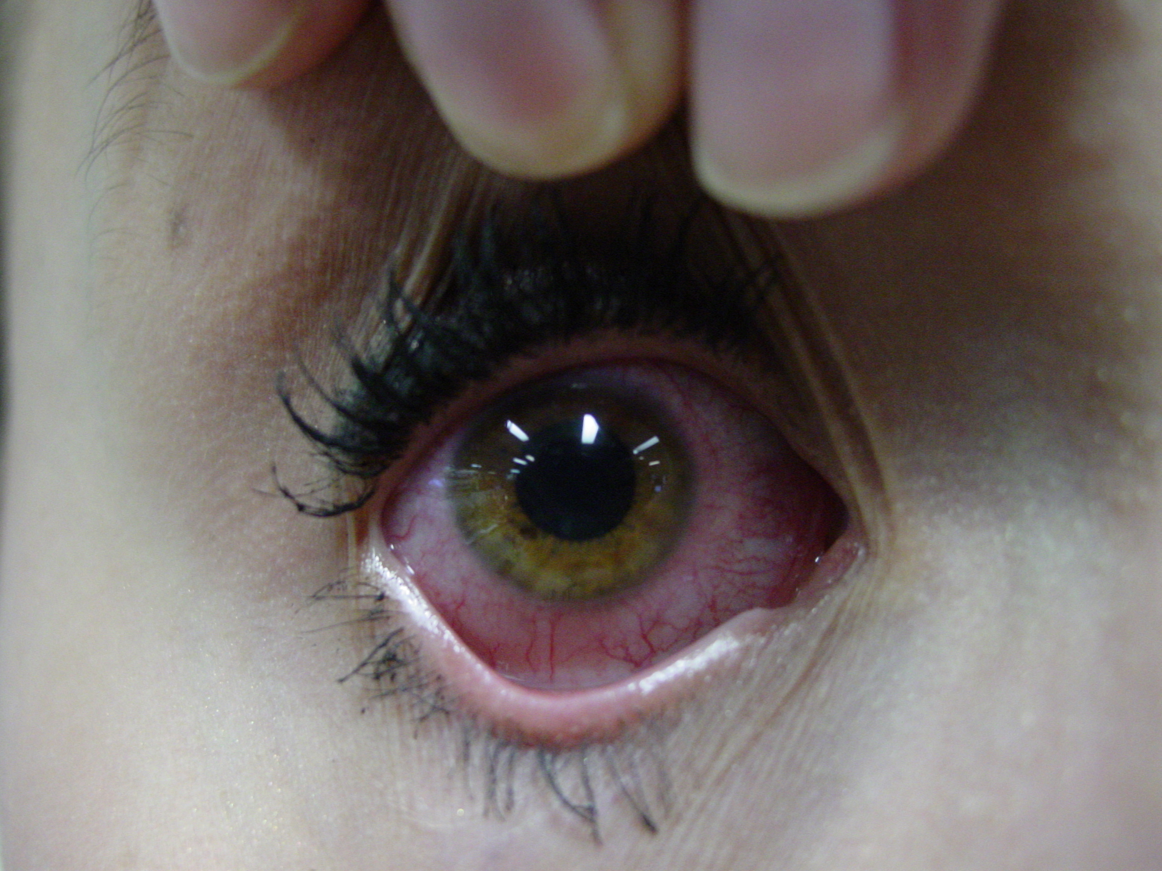 right eye, affected eye