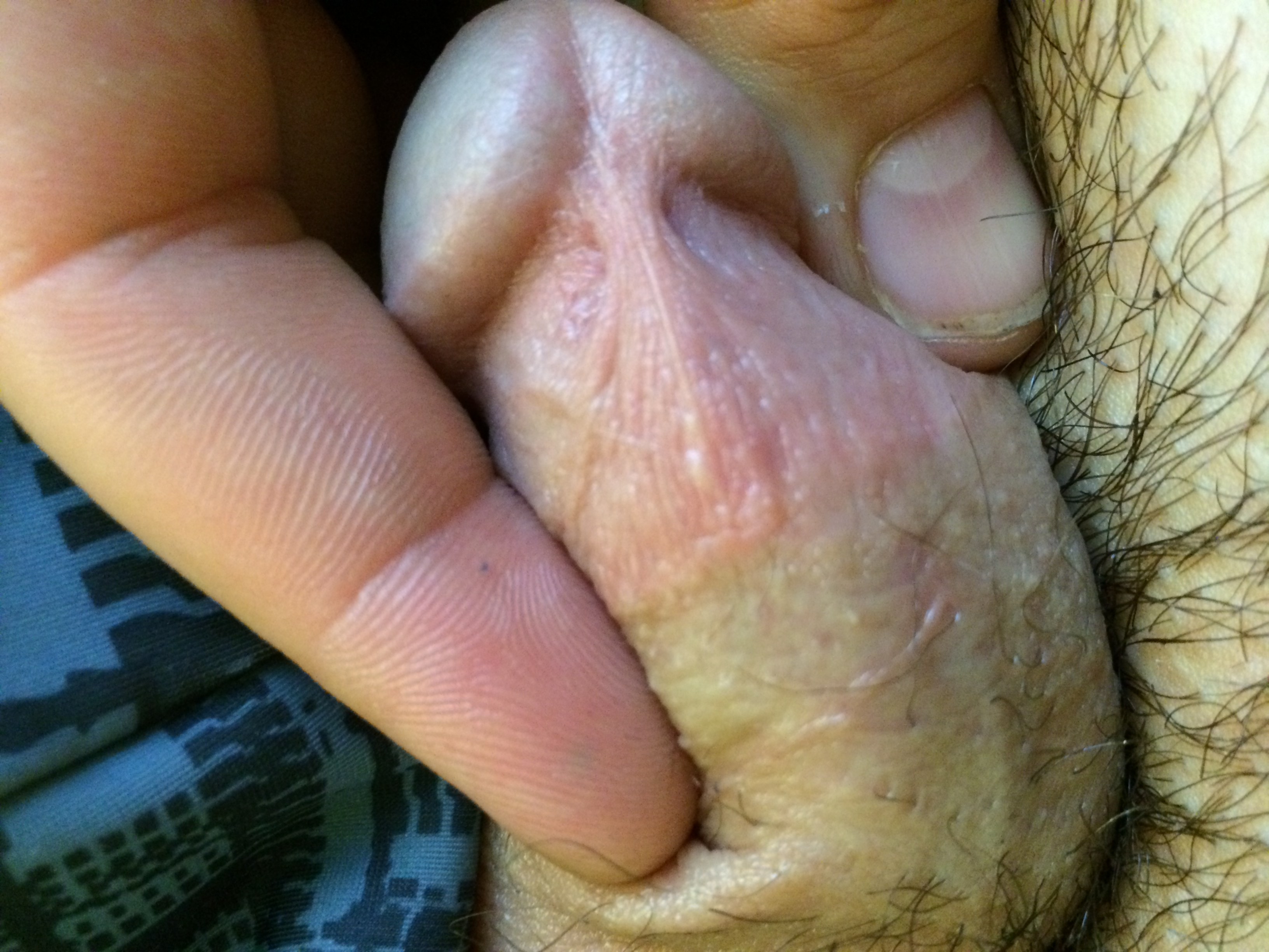 Whiteheads On Penis 10