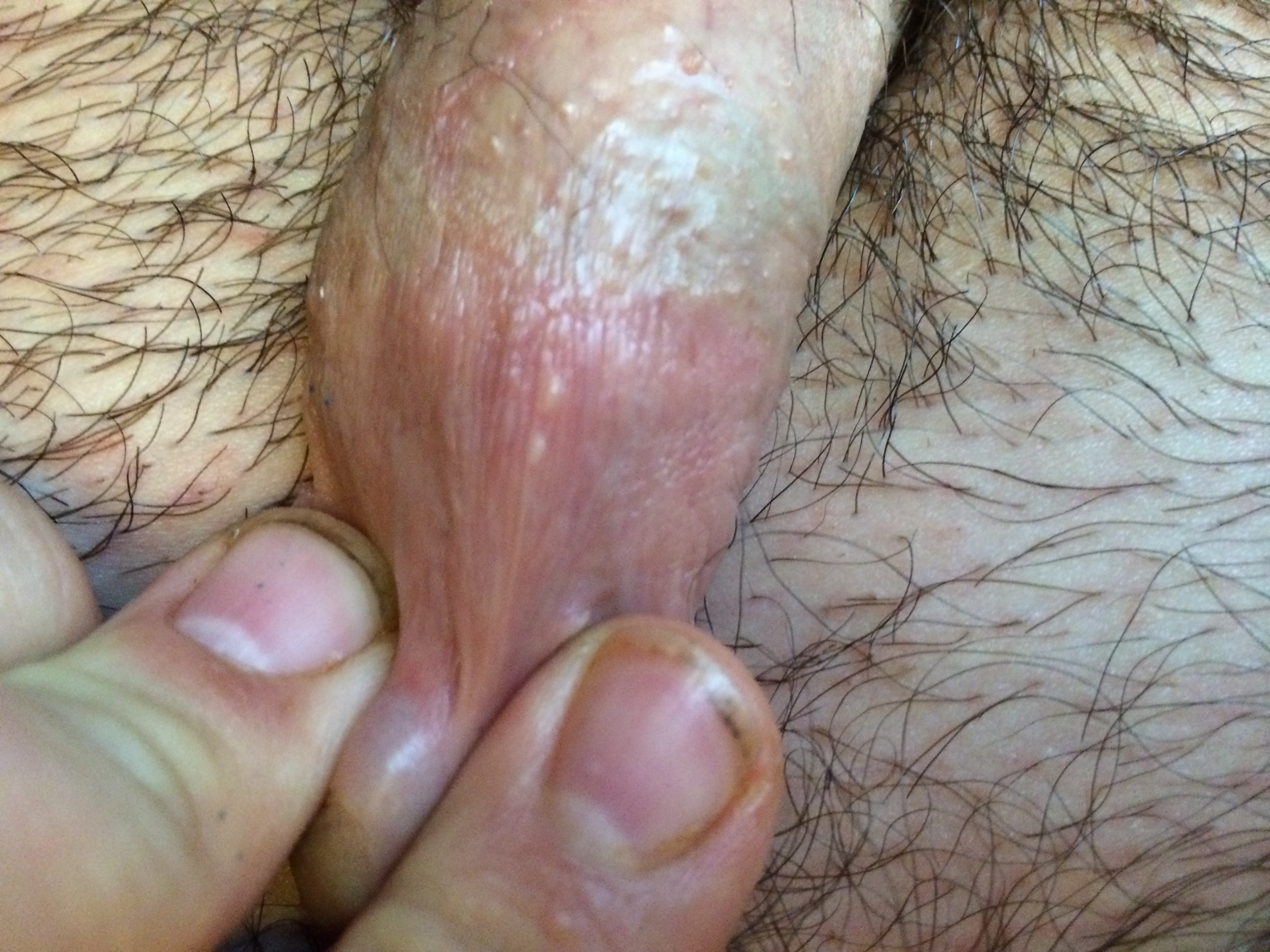 Whiteheads On The Penis 47