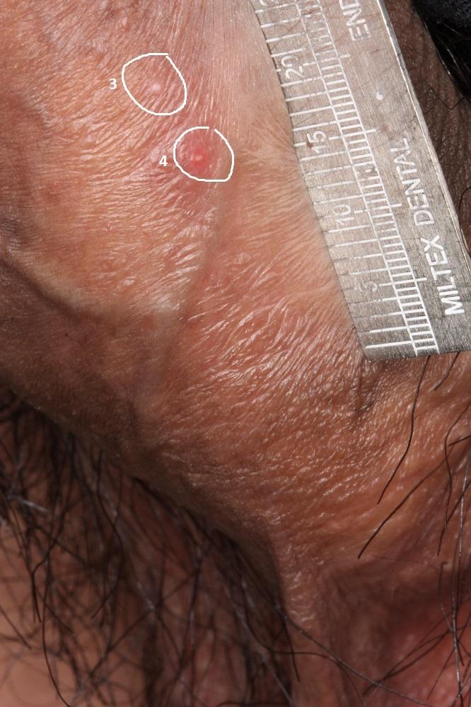 genital herpes on penile head