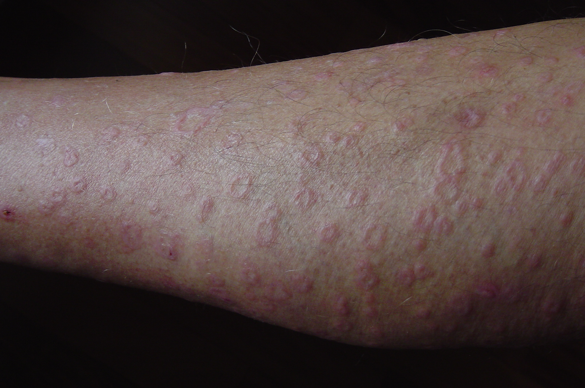 Vascular Rashes On Legs - Doctor answers on HealthTap