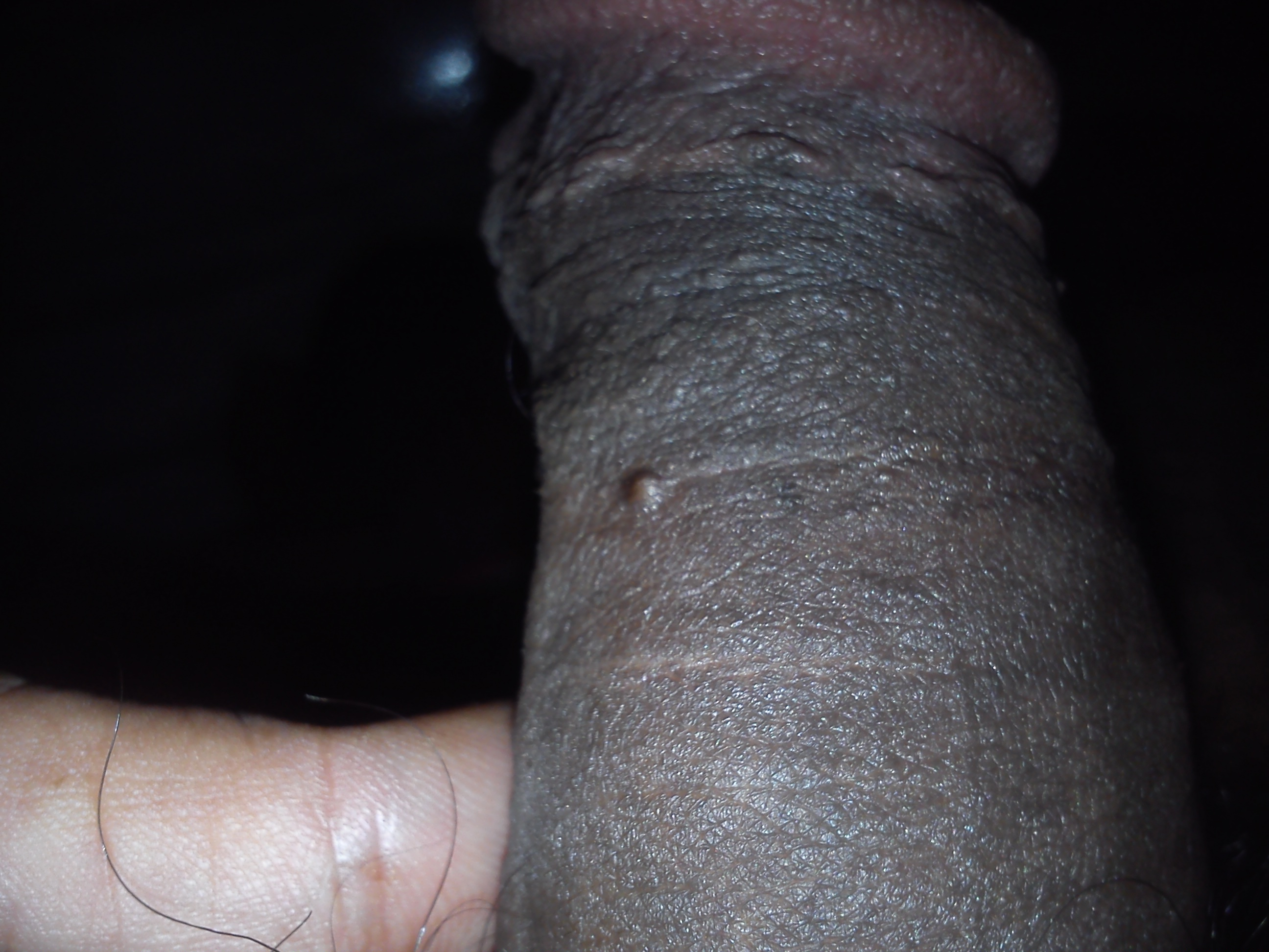 I have a bump on my dick