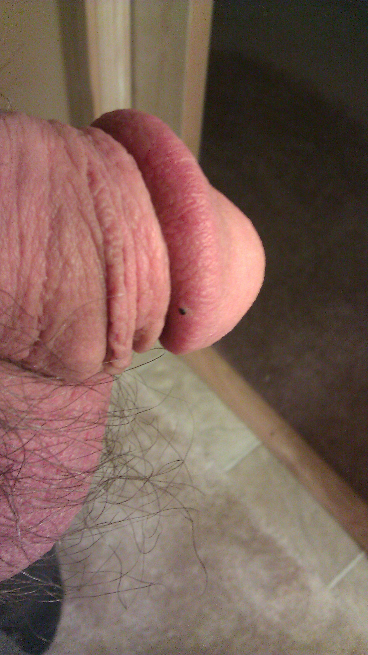 Blood blisters on penis
