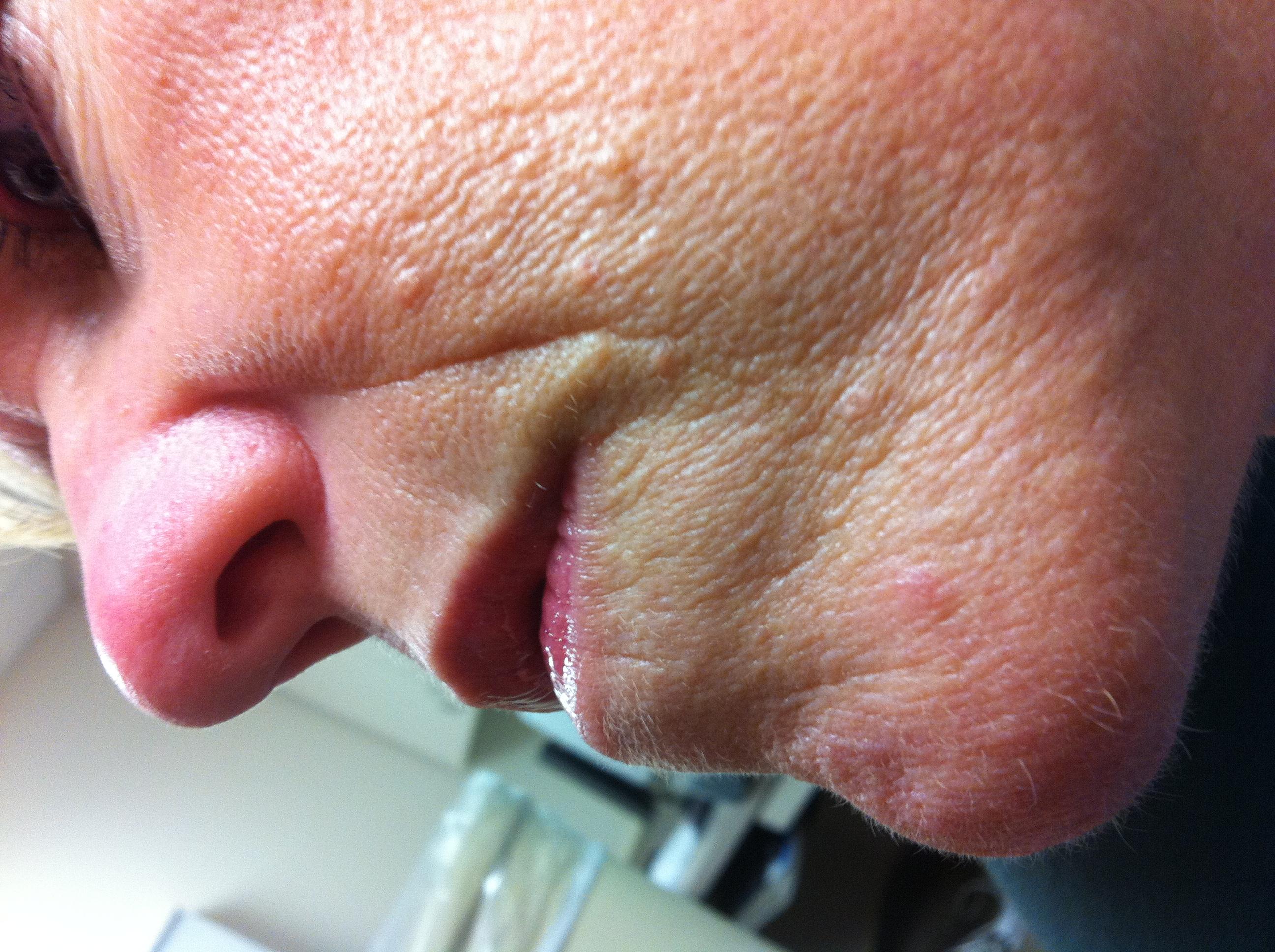 Rash on face under bottom lip