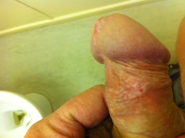 penis White spots shaft on