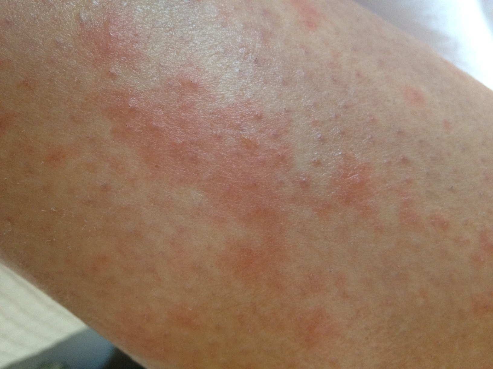 Leg Rash - Symptoms, Causes, Treatments - Healthgrades