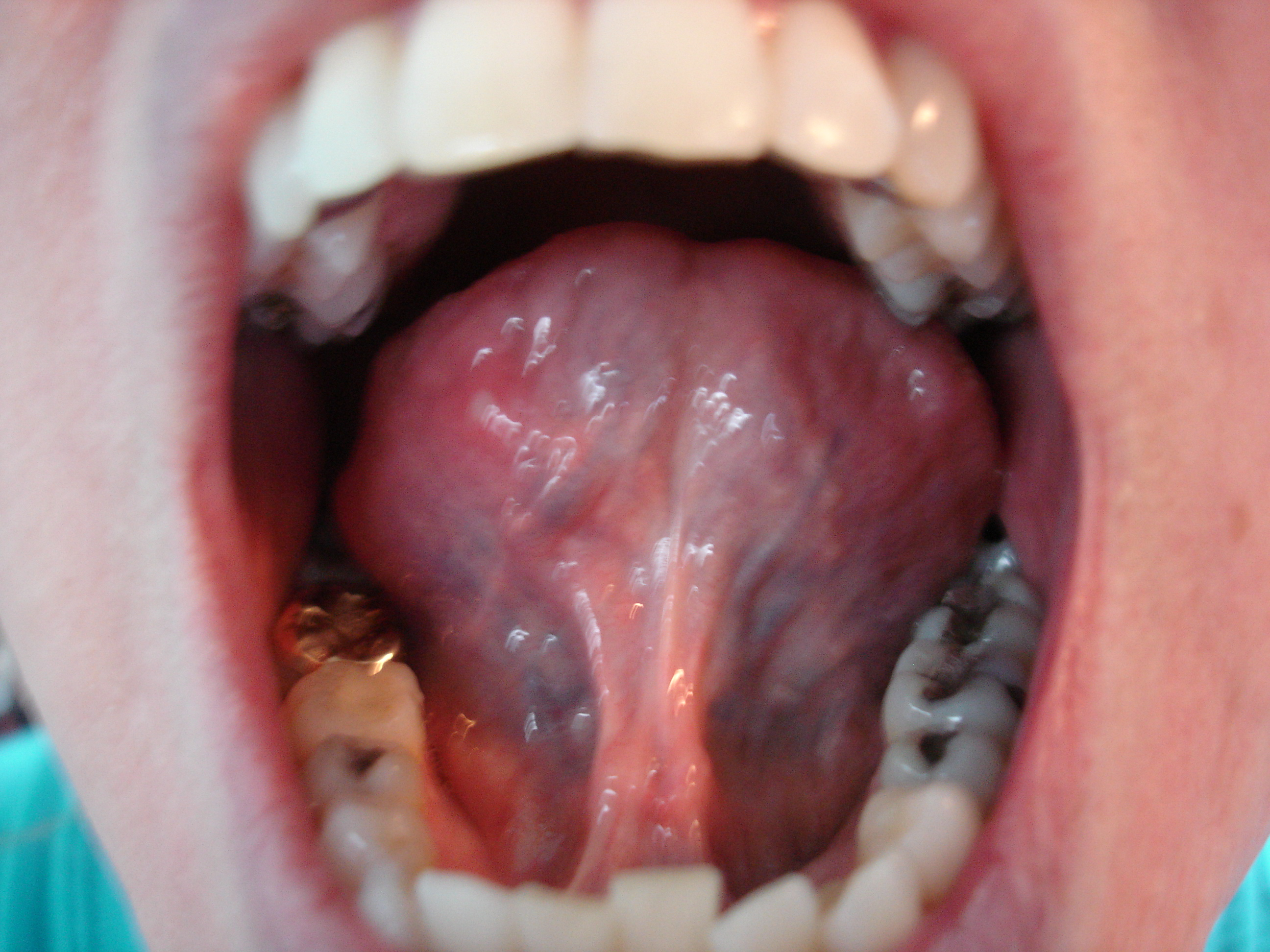 I just noticed the large veins under my tongue are dark blue,