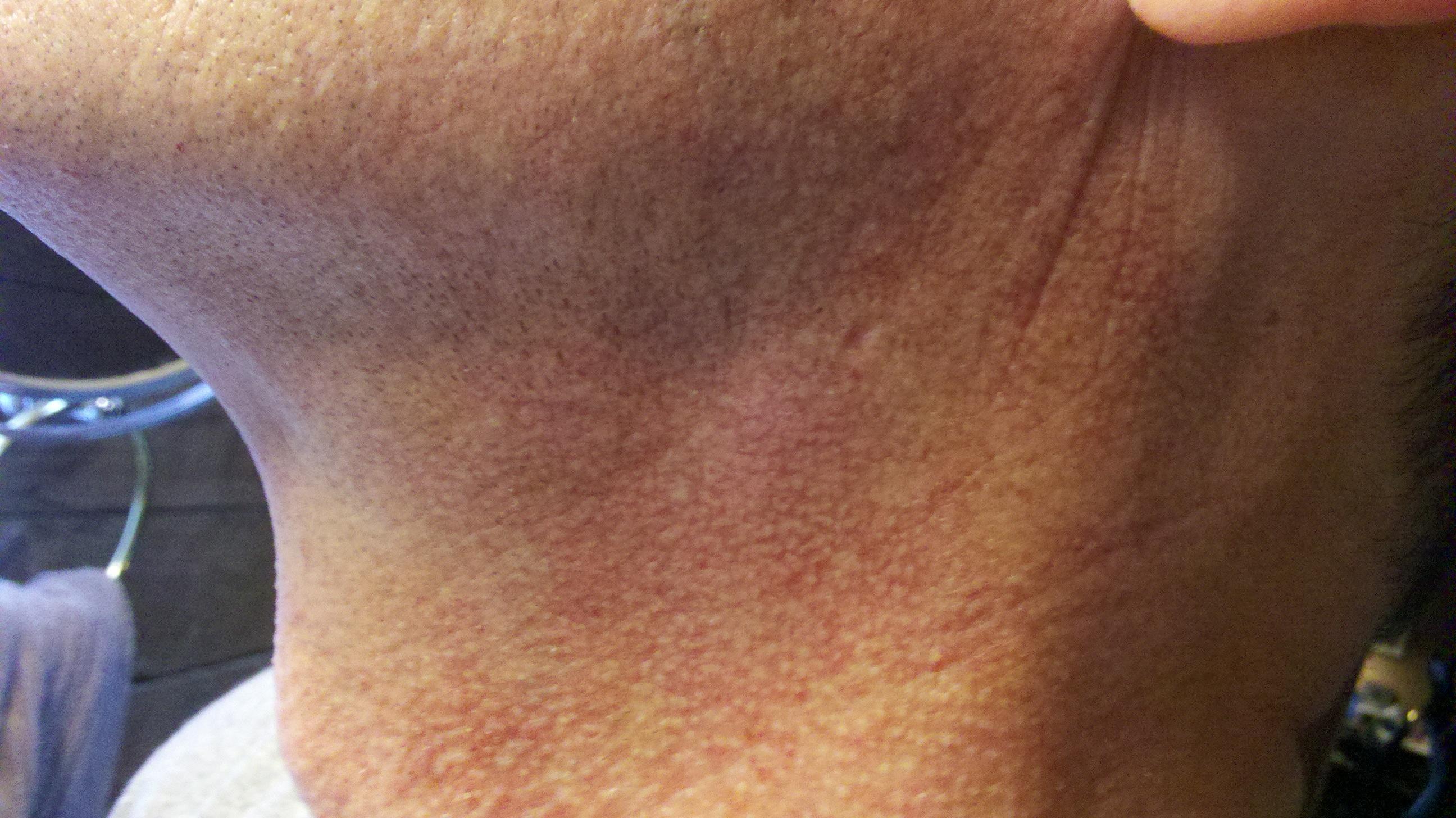 red rash around neck - MedHelp