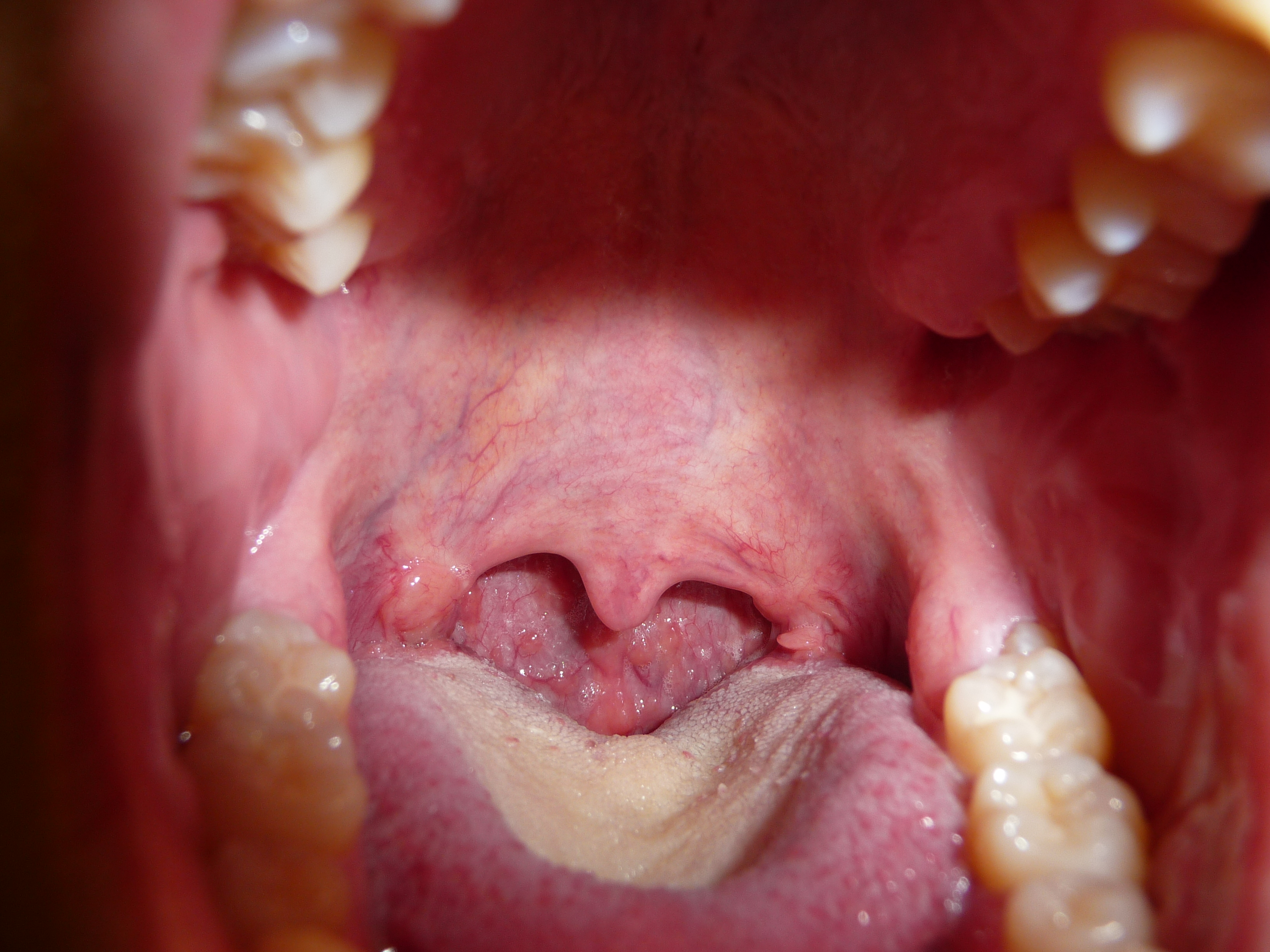 Pin Hpv-throat on Pinterest