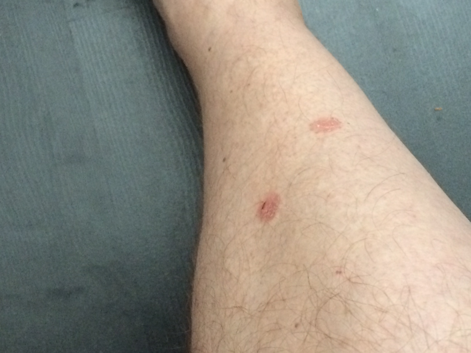 Red patches on my lower legs