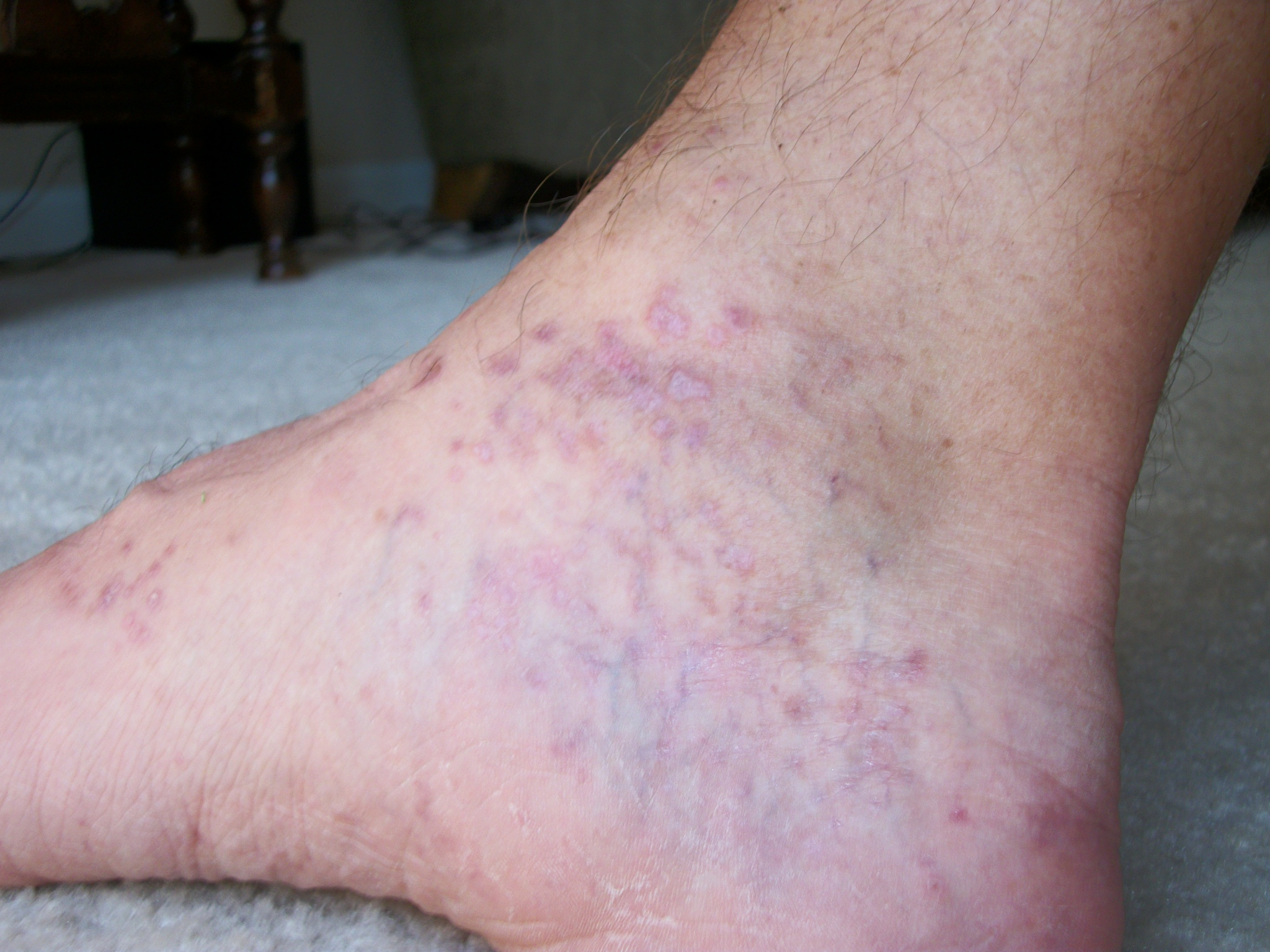 What causes a rash on top of the foot? | Reference.com