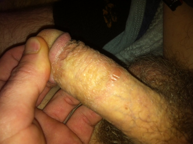 Penis Pain - Caused by Over Masturbation