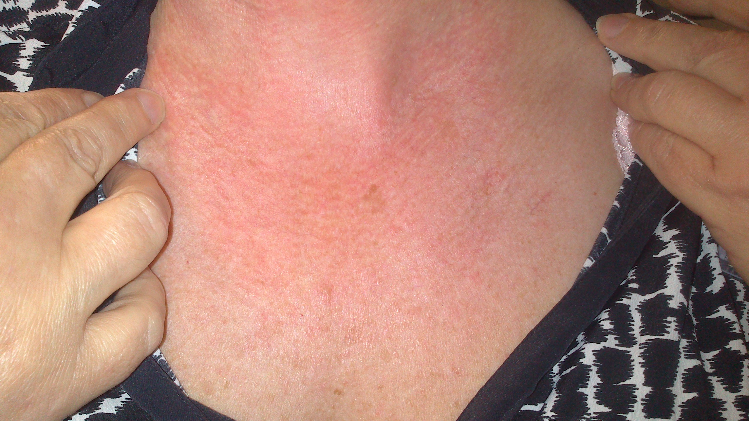 rashes on neck and chest