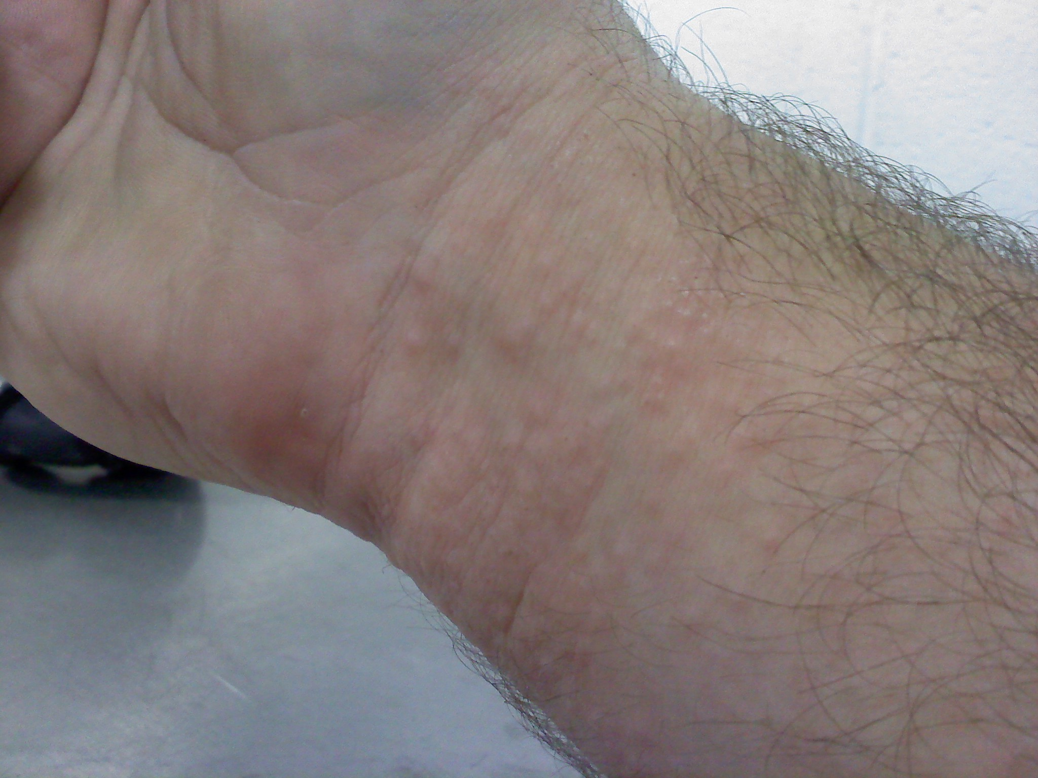 Rash On Both Wrists - Doctor answers on HealthTap