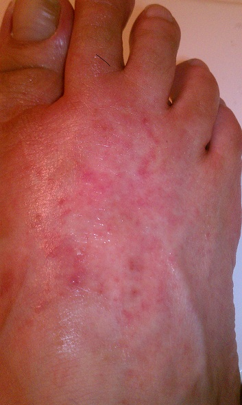 Unknown Rash on Top of Right Foot