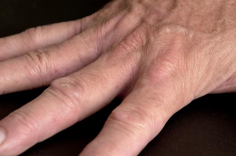dry skin between fingers #11