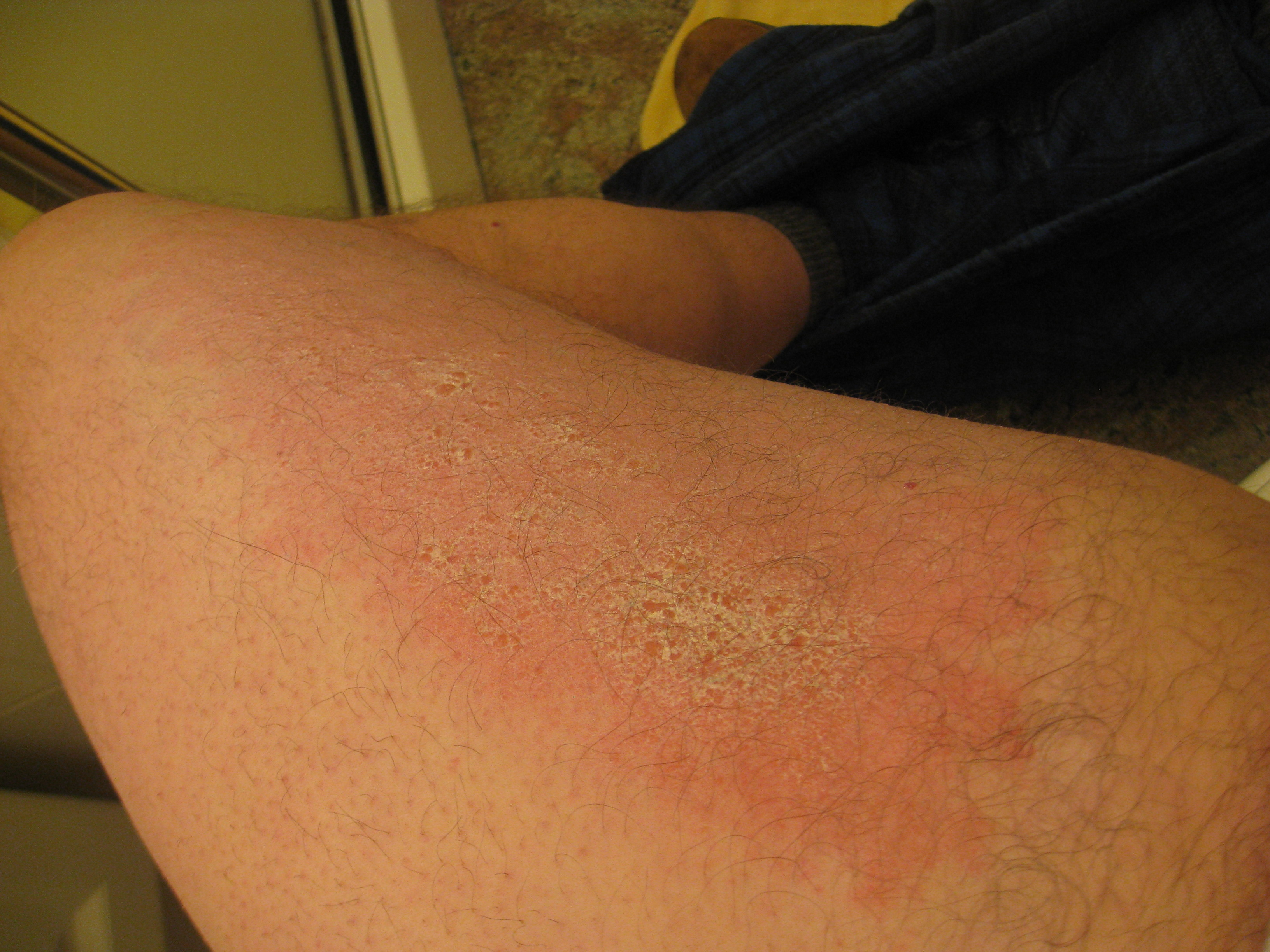 I have a large rash on both of my inner thighs that extends
