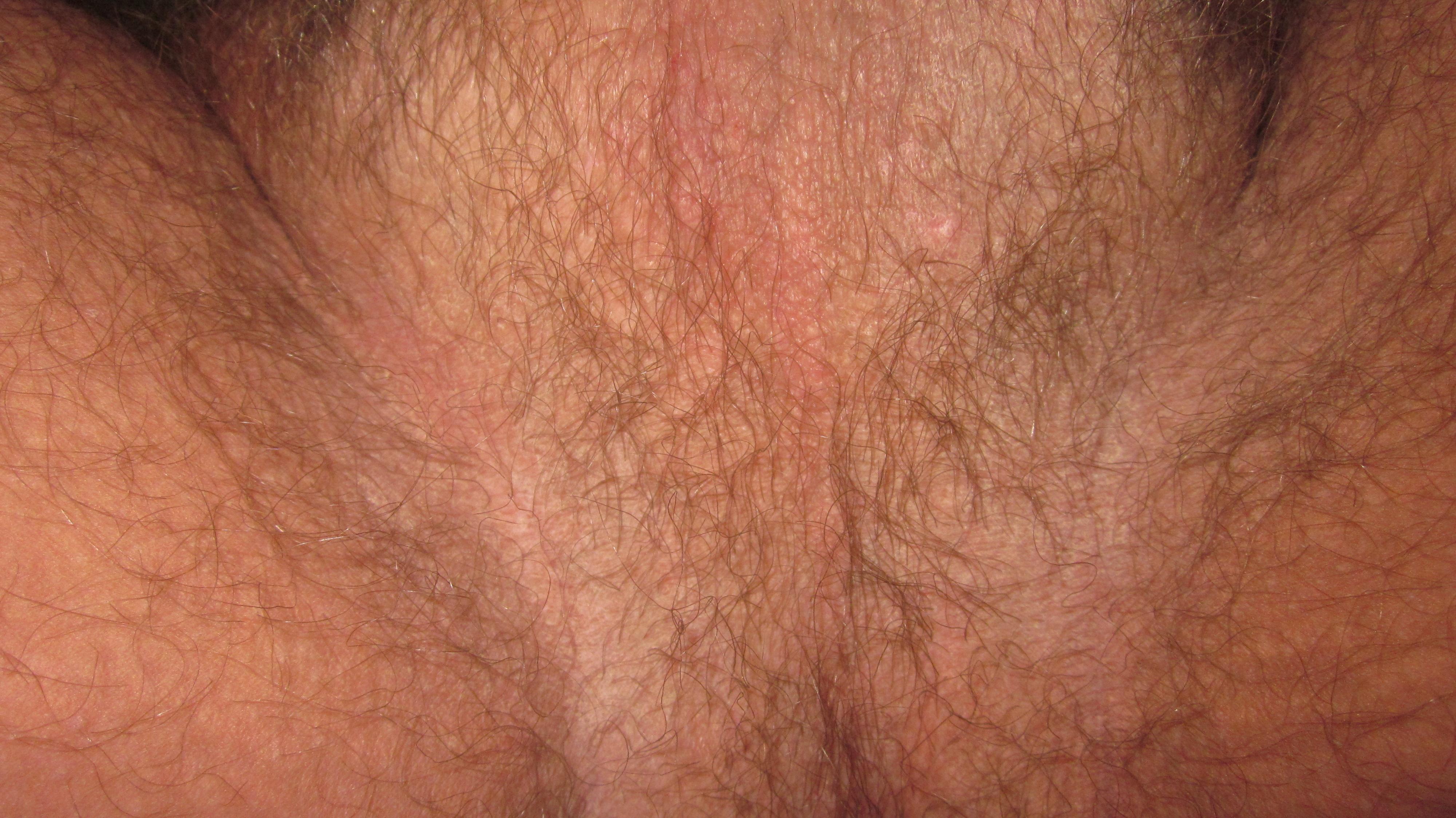itchy scrotum eczema - MedHelp