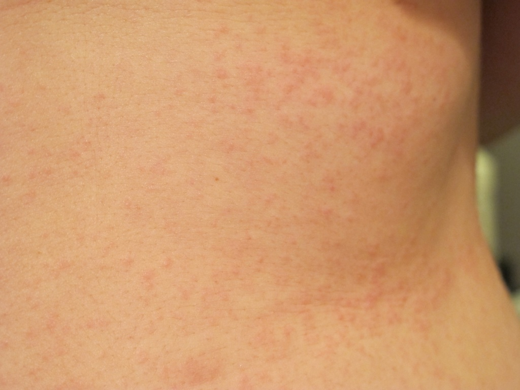 rash on torso and back