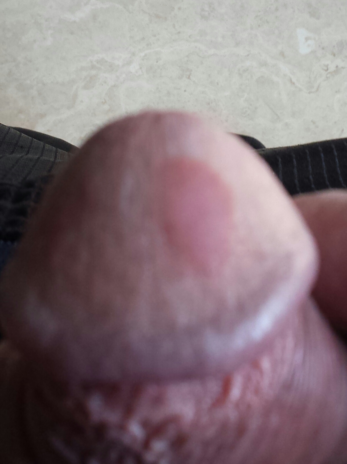 What Is This Rash or Bump on My Penis?