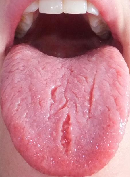 Related Pictures canker sore on tongue treatment home remediesCold Sore Under Tongue Treatment