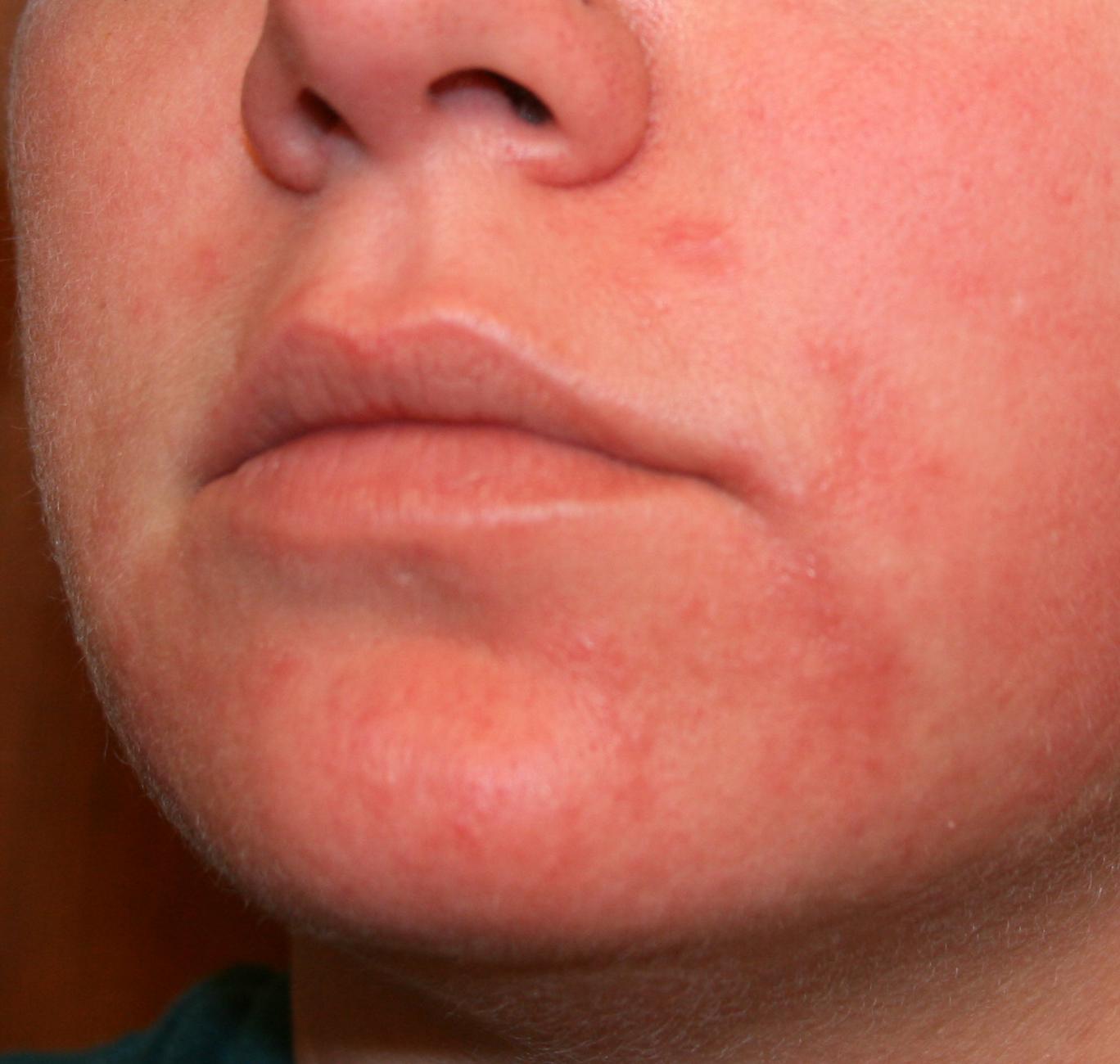 itchy face rash