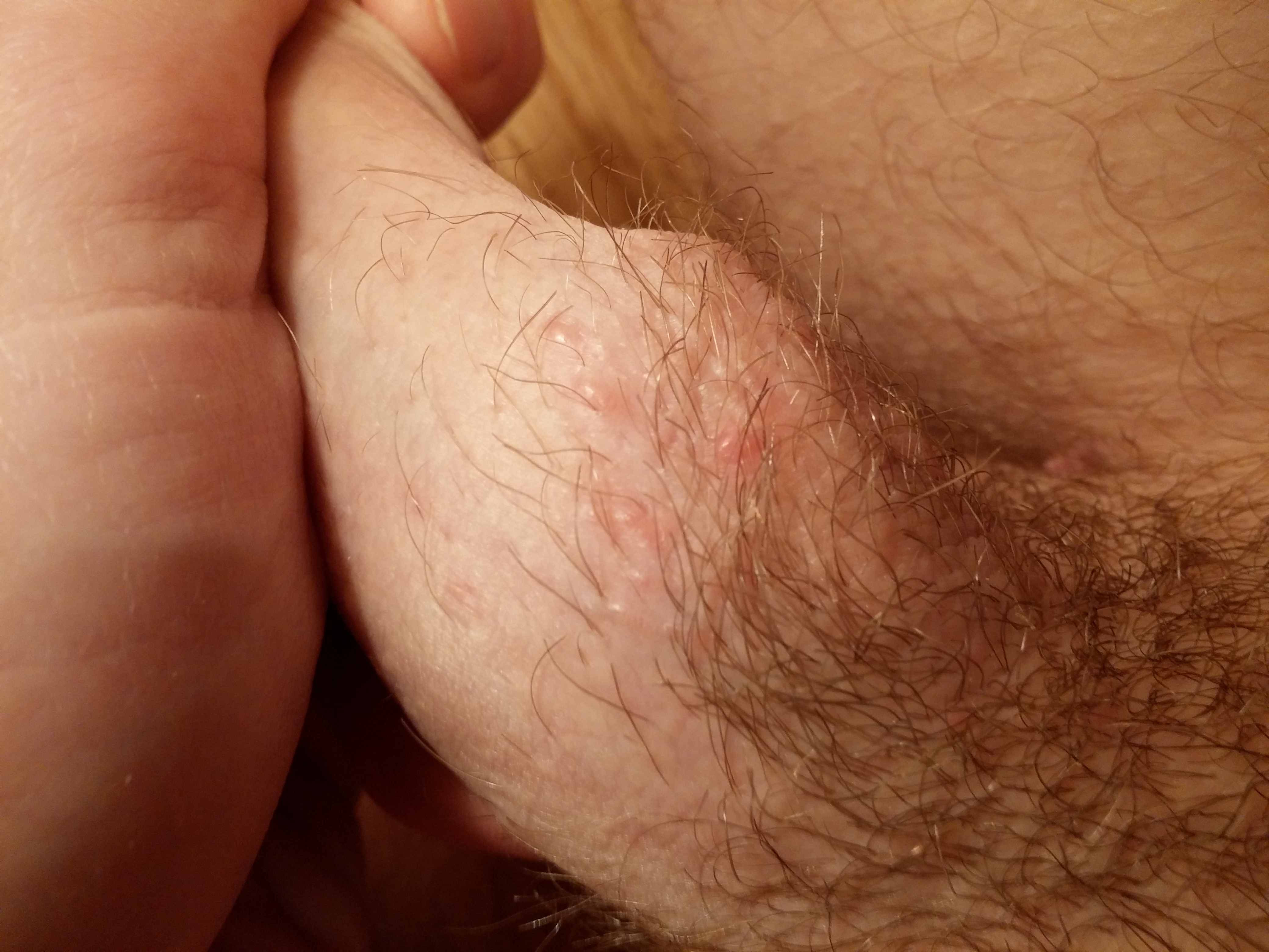 puss filled small dots on penis