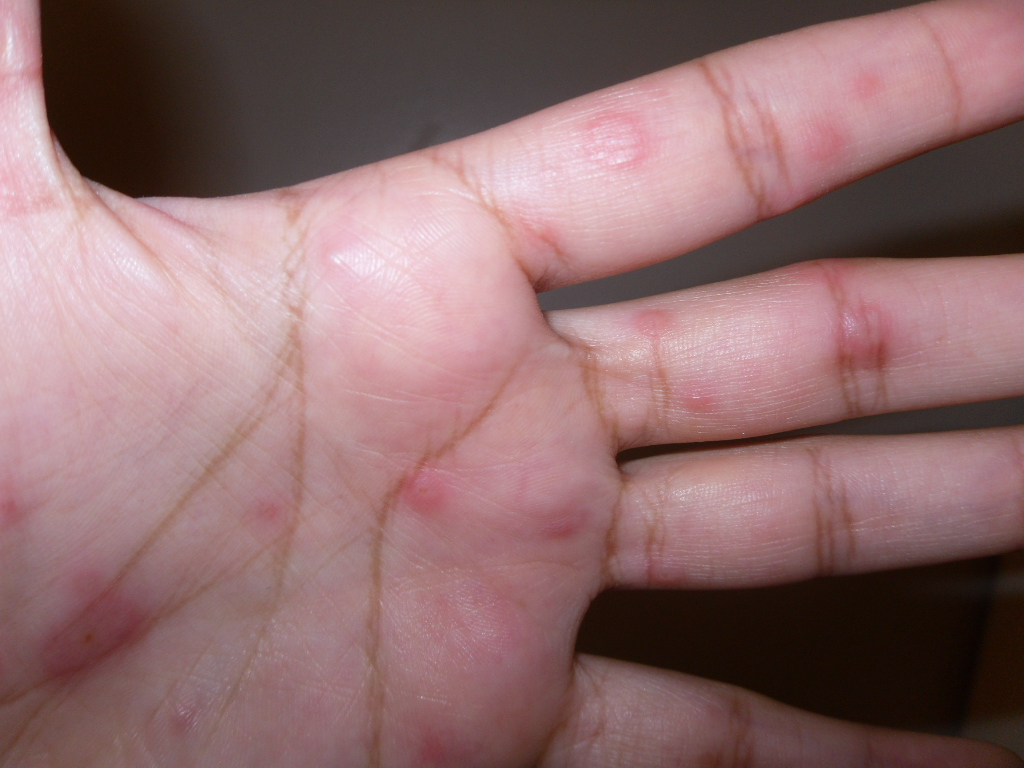 Red spots on hands palms, back, not itchy, tiny, top ...