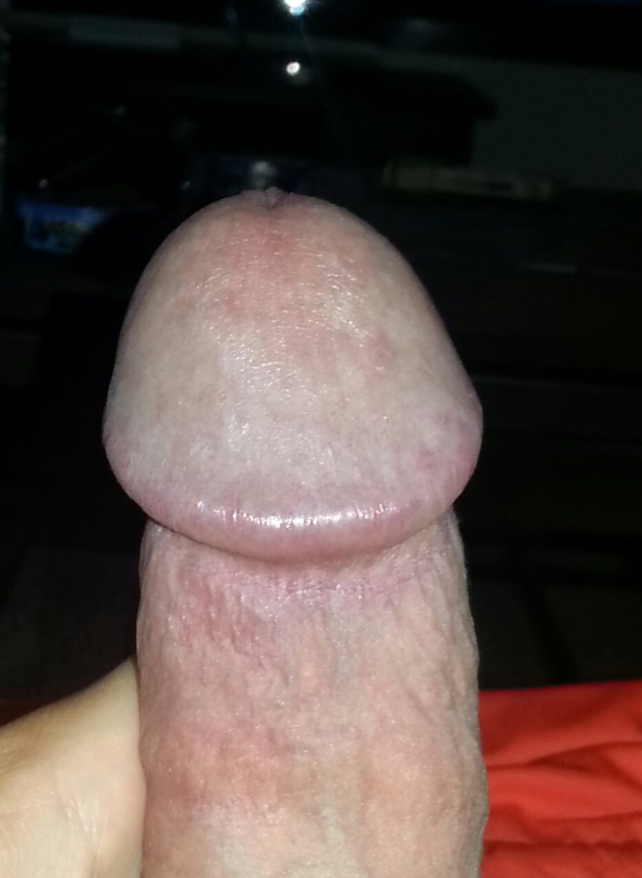 Herpes from masturbation can look