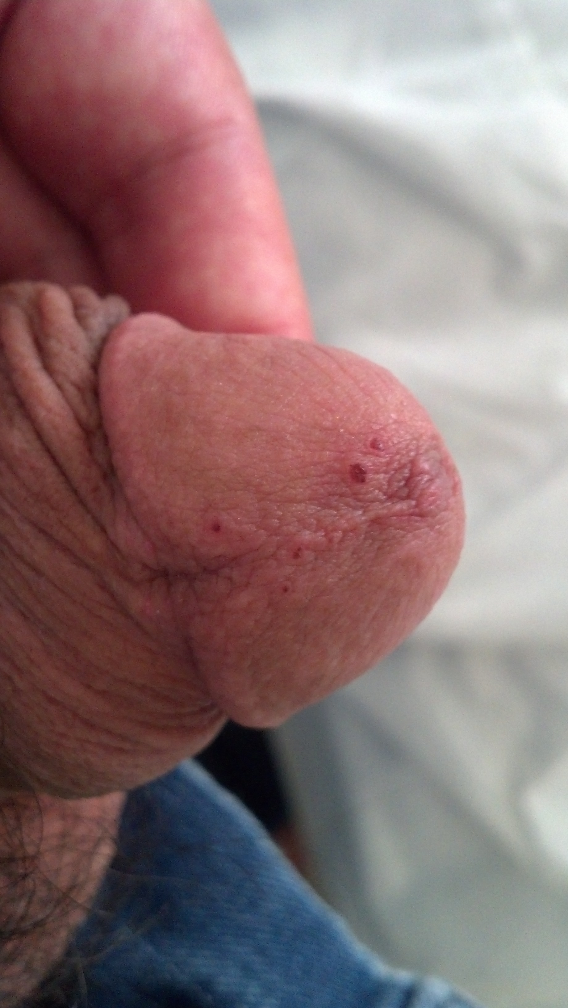 raw skin on penis masturbation