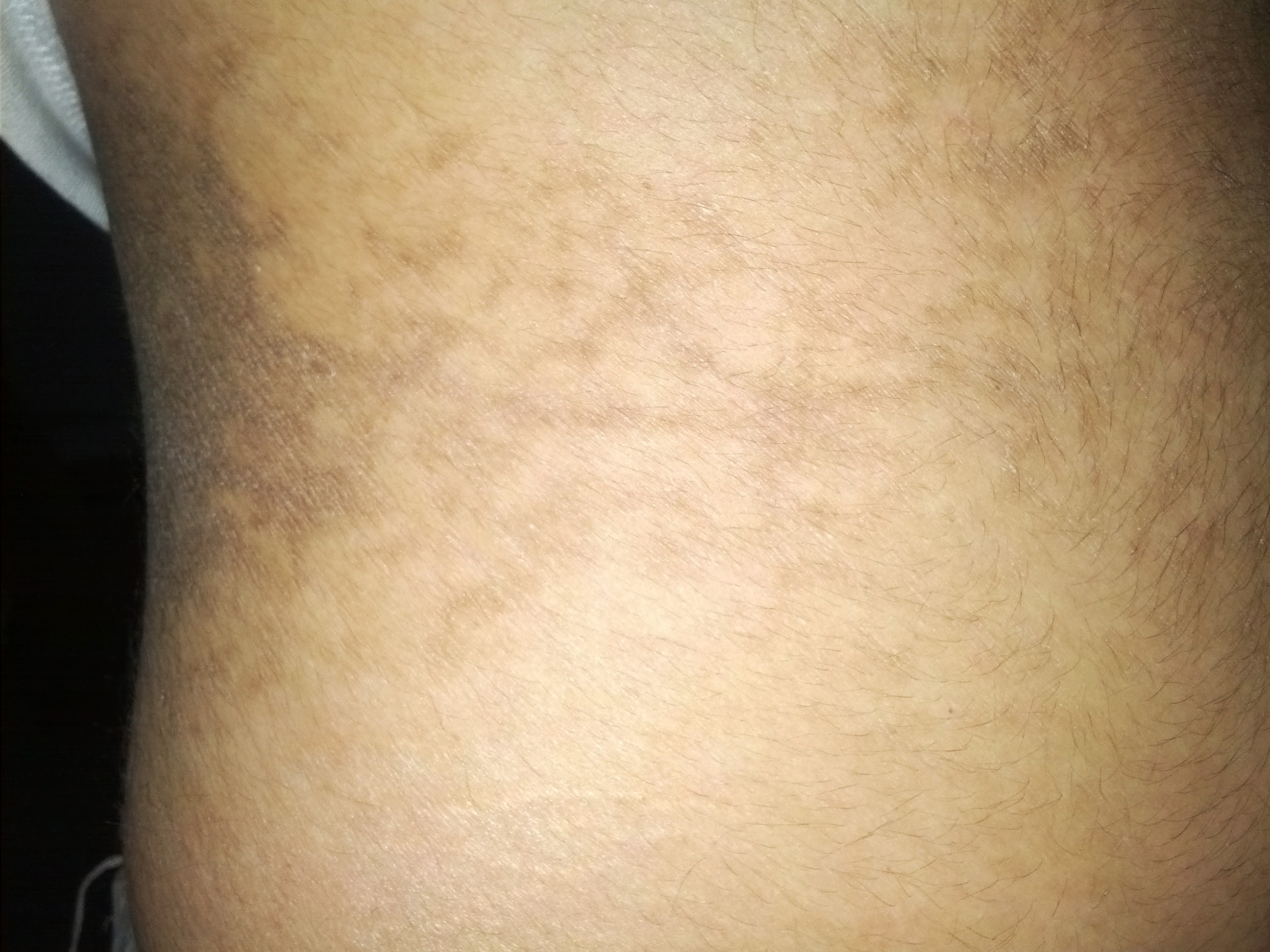 Arthitis that causes dry red patches