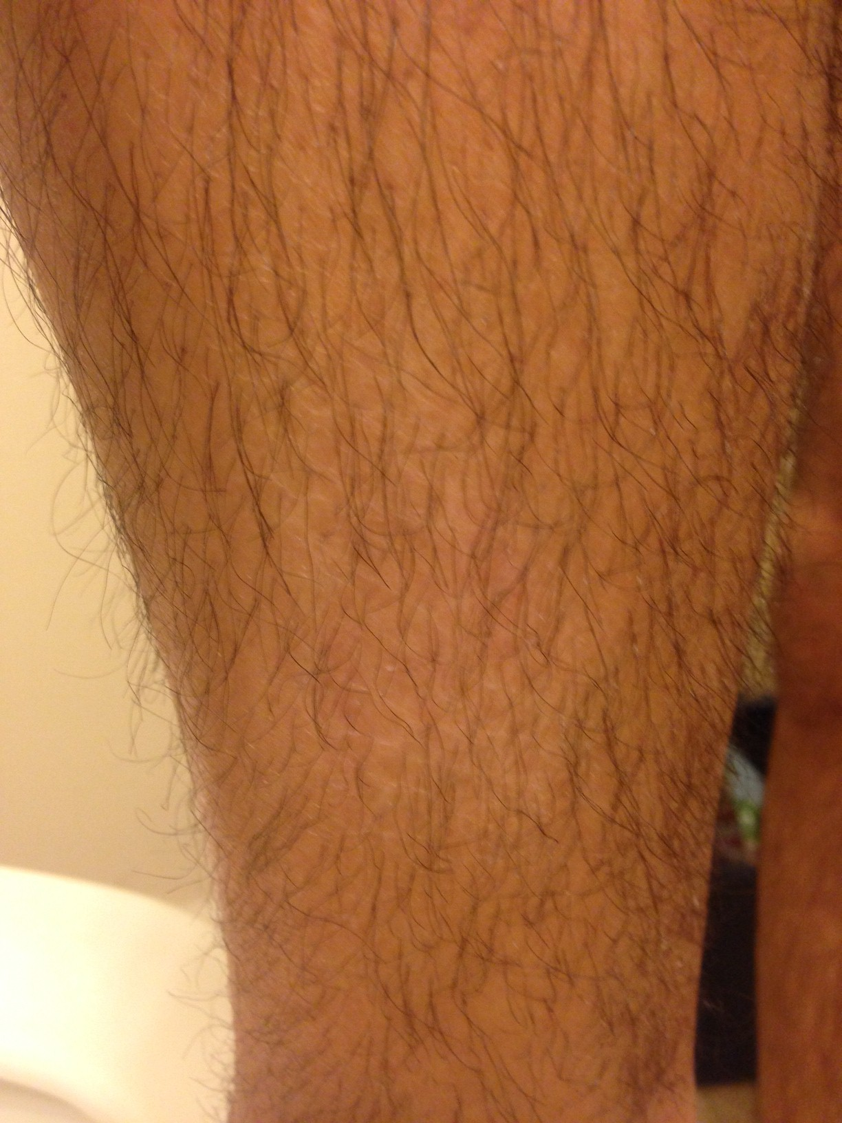 Free download program Dry Patch Of Skin On Thigh - managermaxx