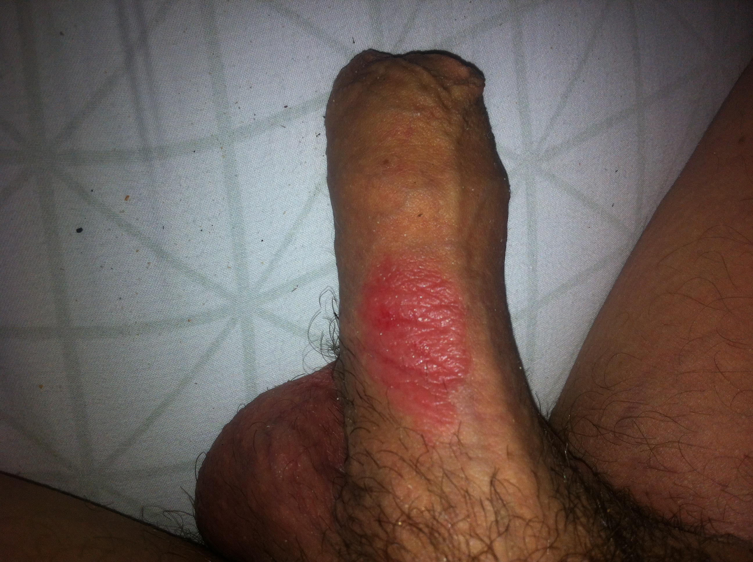 penis rash after sex