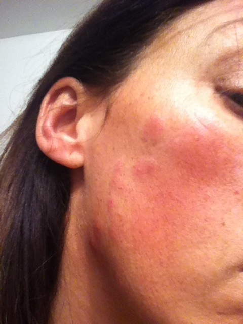 how to stop hives on face