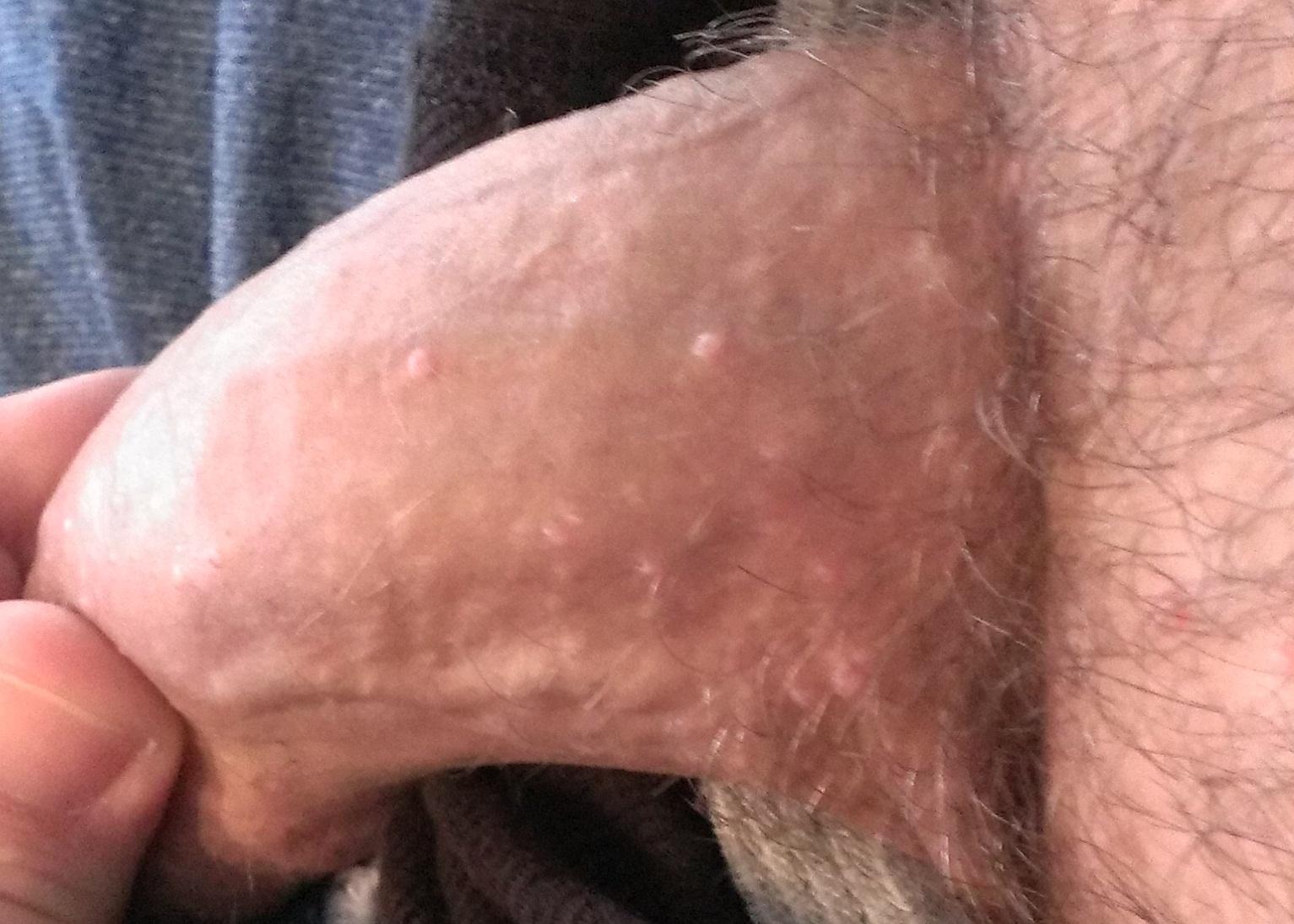 Molluscum Contagiosum Penis 72