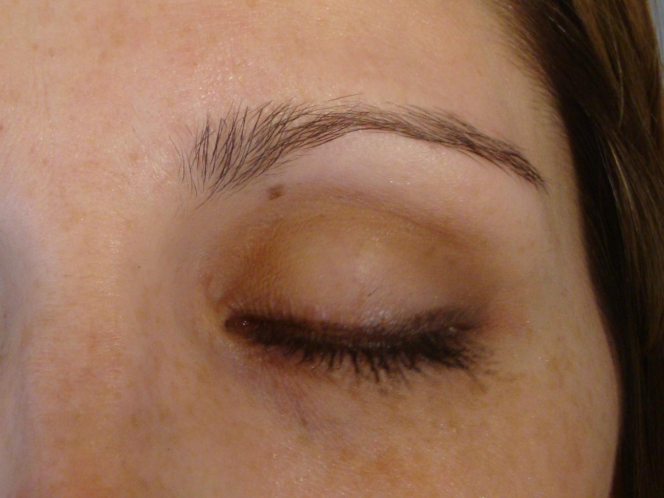 Red spot on eyelid, not a cut? | Yahoo Answers