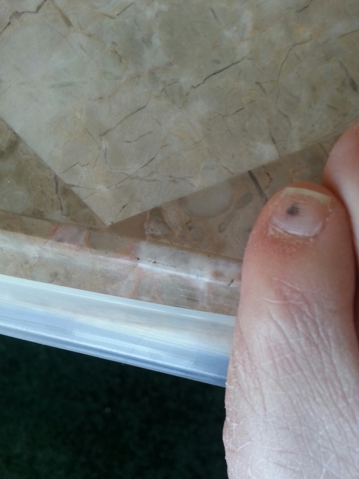 Black Dot On My Toe Nail - Nails Gallery