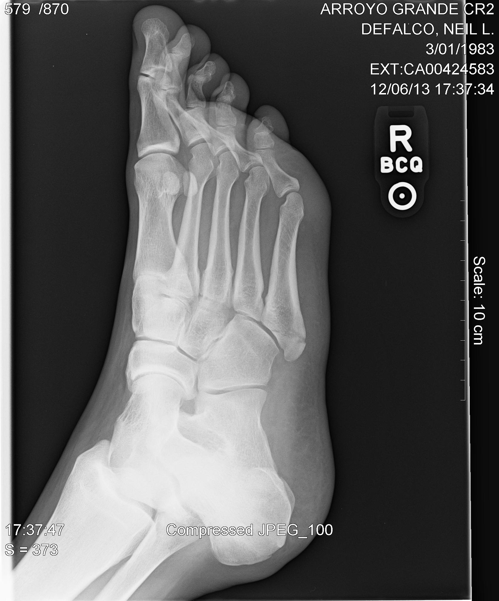 pseudojones right fifth metatarsal fracture needs surgery